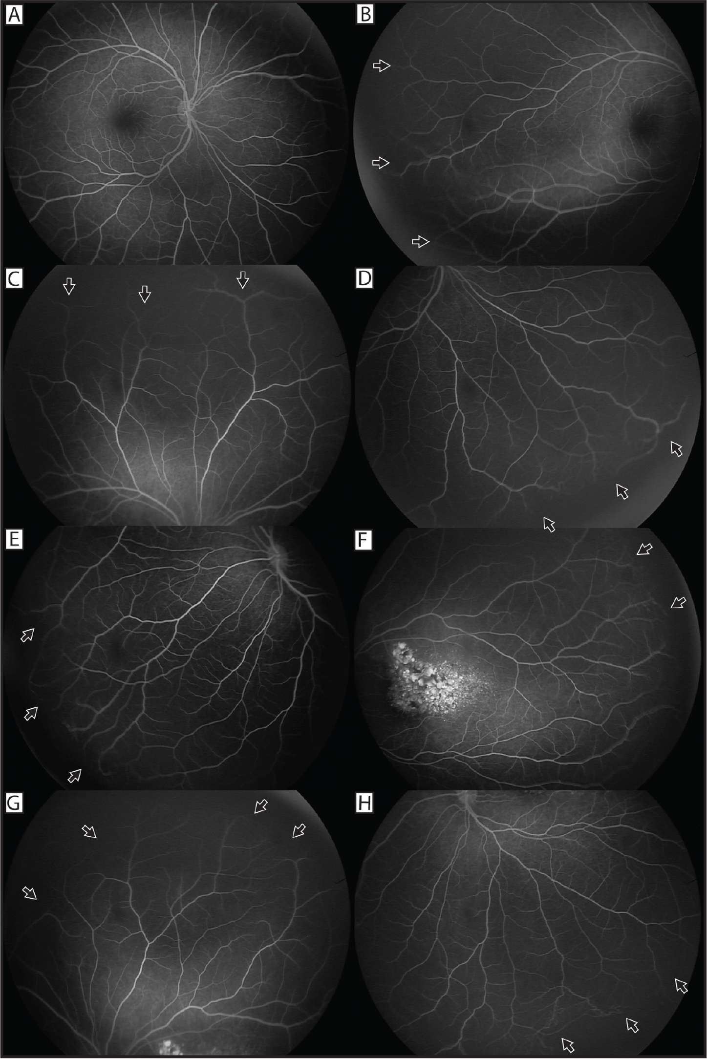 (A) Mid-phase fluorescein angiogram of the right eye at 1:33 seconds. (B) Mid-phase wide field fluorescein angiogram of the right eye at 1:40 seconds demonstrates peripheral nonperfusion and vessel drop-out (arrows) that are also noted in the superior quadrant (C) and inferonasal quadrants (D). (E) Mid-phase photograph of nasal quadrant in left eye demonstrates peripheral nonperfusion and vessel dropout (arrows) that is also noted in the temporal quadrant (F). (G) Mid-phase photograph of superior quadrant in left eye that demonstrates capillary nonperfusion and cessation of vessels (arrows) with vascular anomalies that are also revealed in the inferotemporal quadrant of the left eye (H).