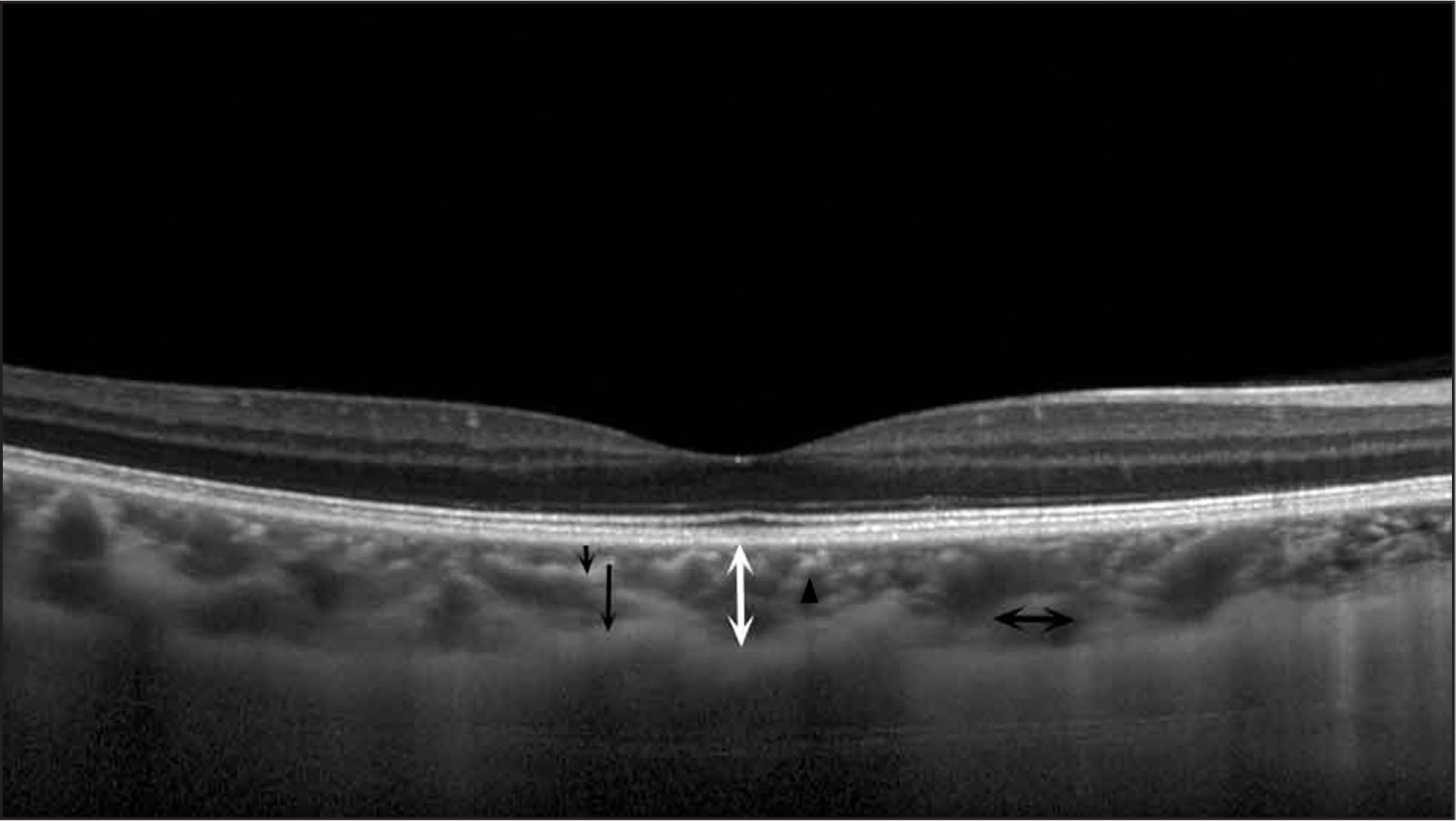 An enhanced depth imaging spectral-domain optical coherence tomography choroidal image of a control participant. There were a number of hyperreflective profiles with hyporeflective cores in Haller's layer (long black arrows) and Sattler's layer (short black arrows). The black double-headed arrow shows the diameter of the vessels in Haller's layer, and the black triangle shows the hyperreflective profile with hyporeflective core in Sattler's layer.