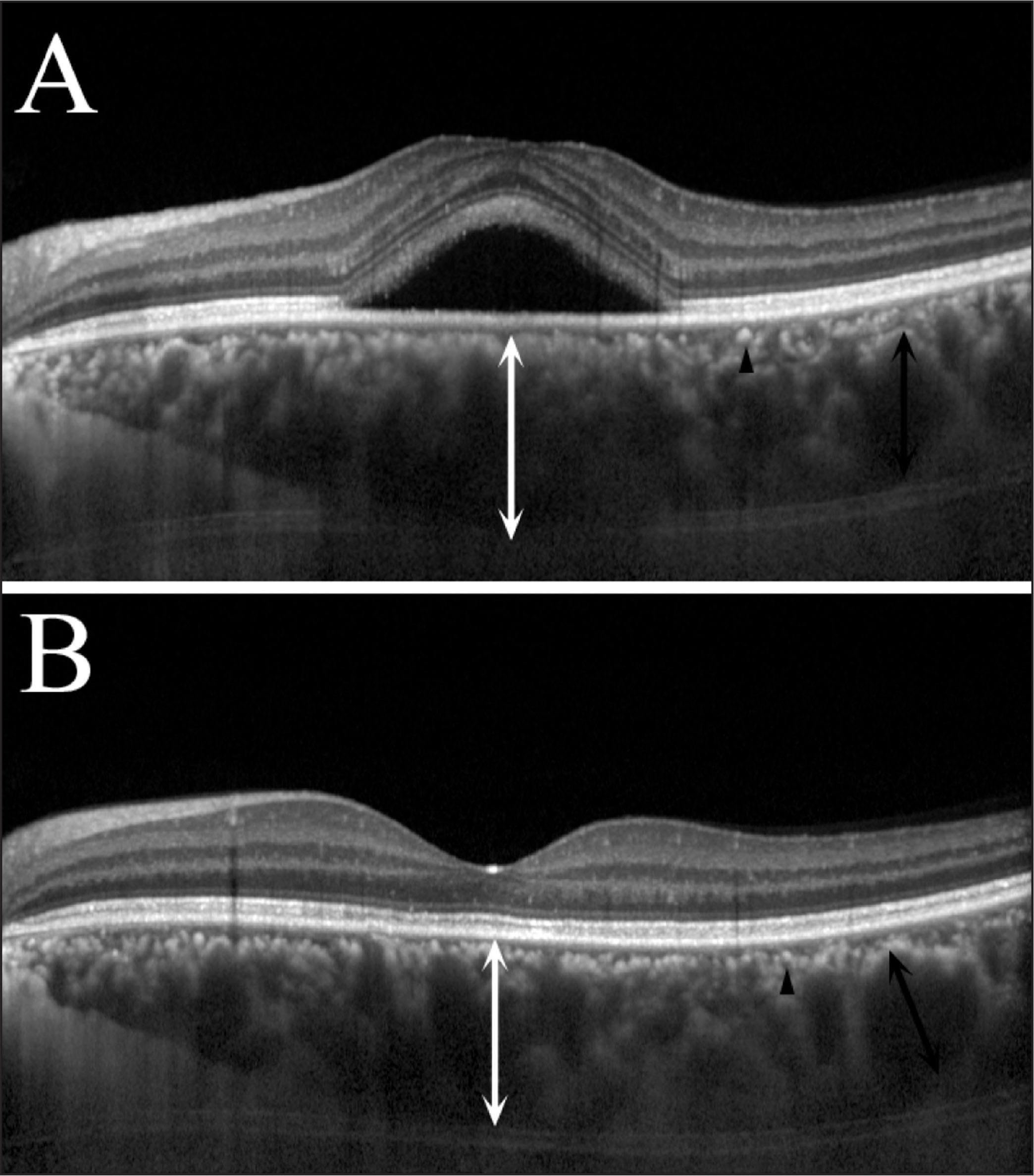 Enhanced depth imaging spectral-domain optical coherence tomography choroidal images of a patient with central serous chorioretinopathy. The number of hyperreflective profiles with hyporeflective cores did not change before or after treatment.
