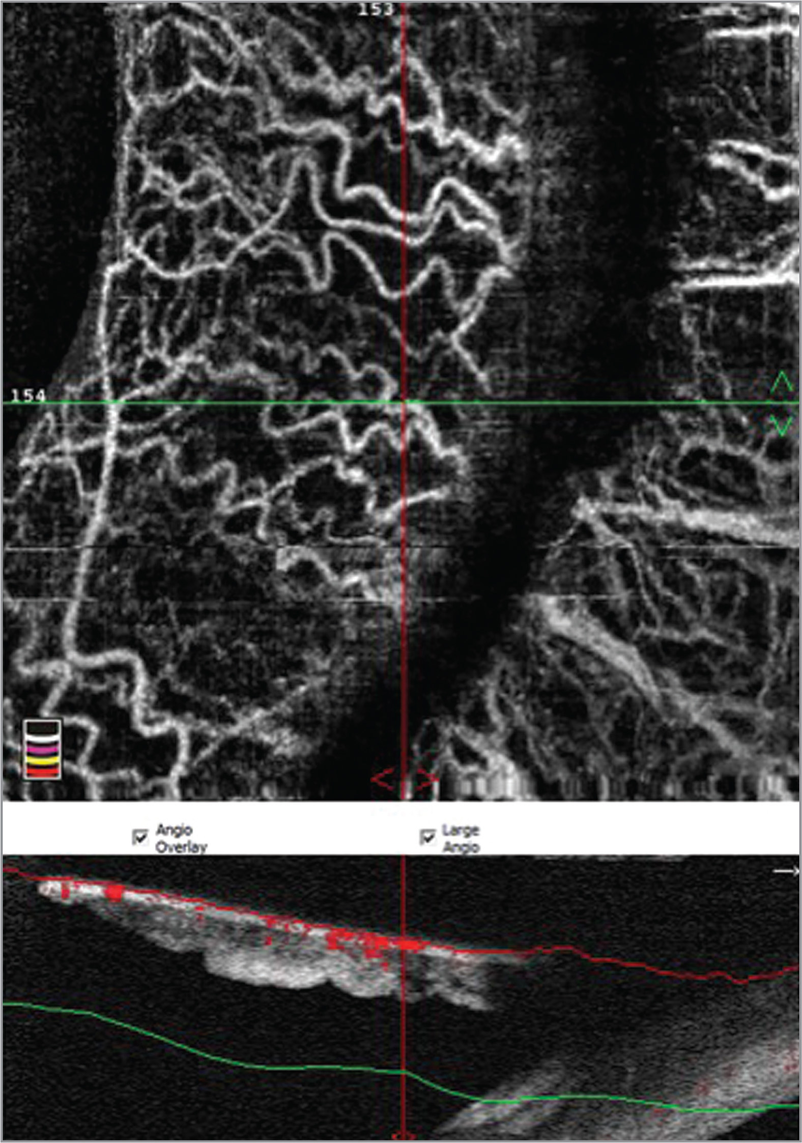 Figure shows 3 × 3 volume cubes optical coherence tomography angiography (OCTA) and OCT in normal iris: inferior temporal sector in left eye.