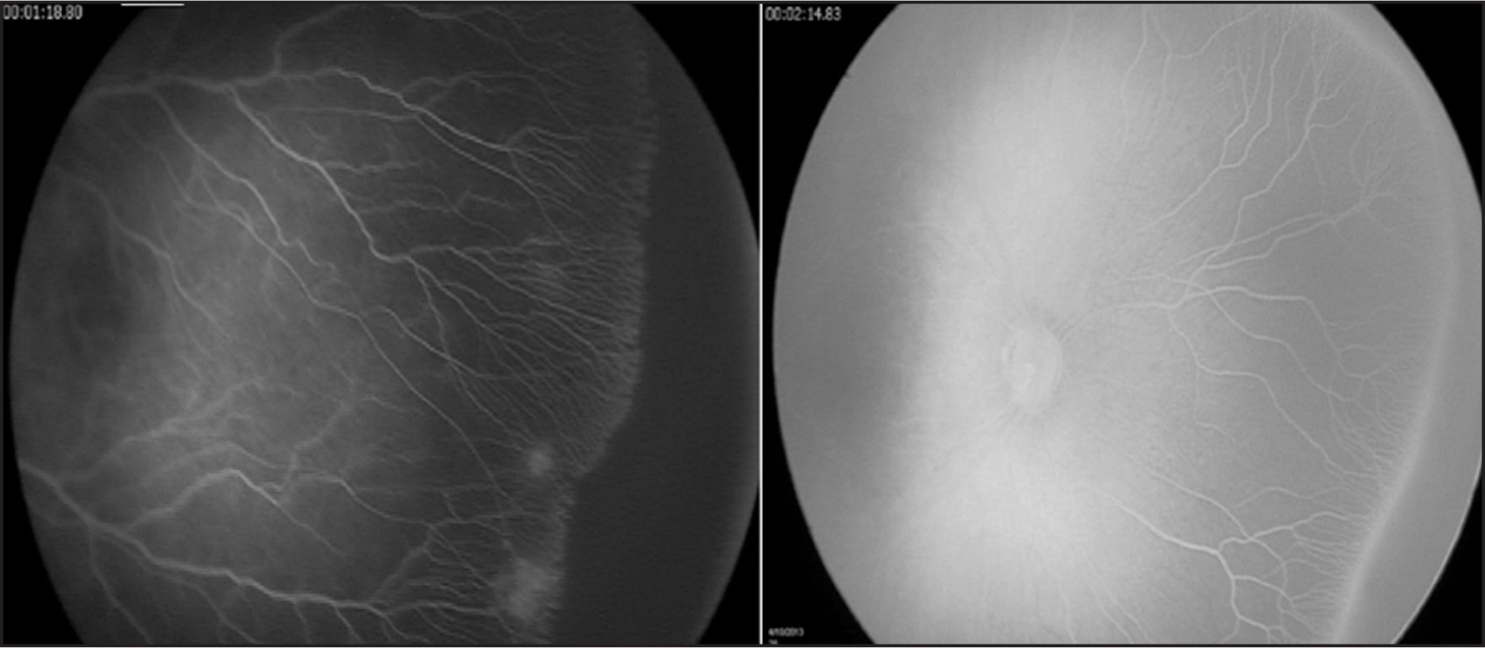 Classic homogenous vascularization pattern present at the ridge seen in two untreated infants with retinopathy of prematurity (gestational age: 37 weeks).