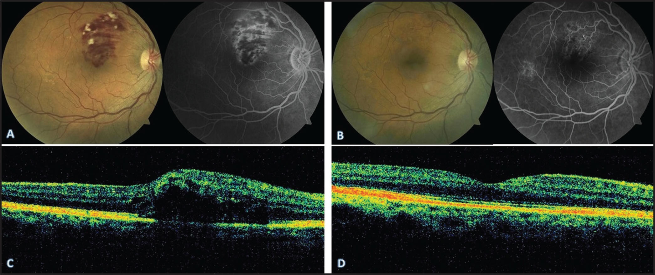 (A, B) Fluorescein angiography at baseline and at 3 months in a patient after intravitreal diclofenac (IVD). (C, D) Optical coherence tomography baseline and at 3 months after IVD showing resolution of macular edema.
