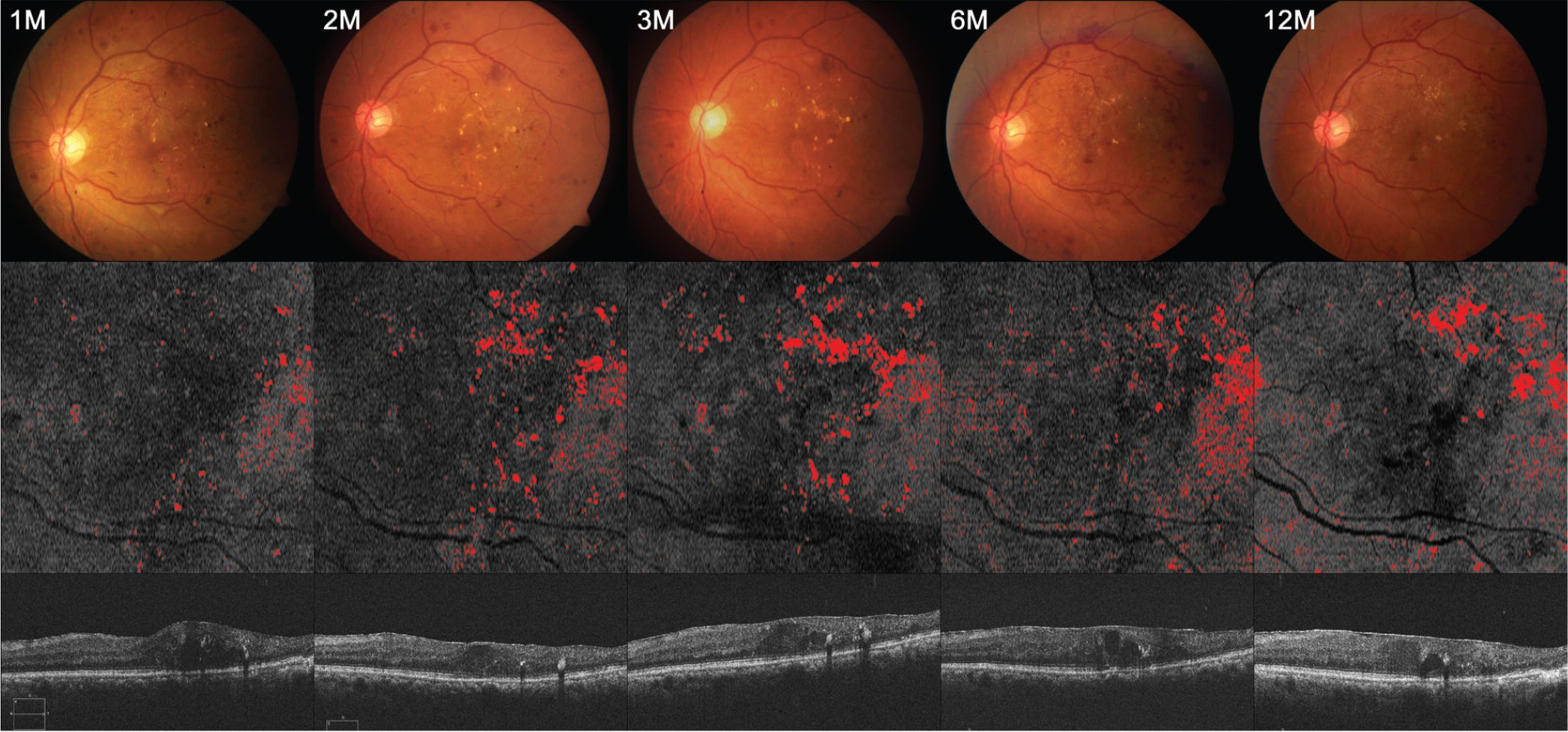 Serial changes in en face outer nuclear layer (ONL) slab hard exudates (HEs) after intravitreal ranibizumab treatment: a 69-year-old male patient with diffuse retinal thickening. Color fundus images (top), en face ONL slab images indicated with HEs area in red (middle), and cross-sectional images of central subfield corresponding to the en face image (bottom). The area fraction ONL HEs in en face ONL slab images are 1.68% at month 1, 2.80% at month 2, 3.18% at month 3, 3.42% at month 6, and 3.43% at month 12.