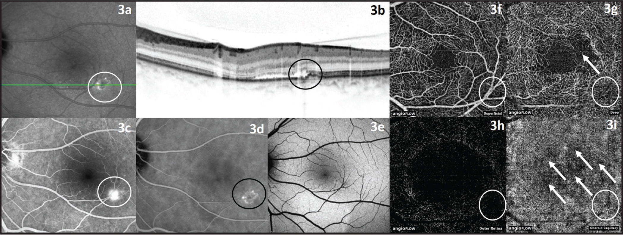 Left eye of a 47-year-old male patient with acute central serous chorioretinopathy. (A, B) Infrared and optical coherence tomography (OCT) image showing retinal detachment and detachment of retinal pigment epithelium (circle). (C) Fluorescein angiography image with leakage point (white circle). (D) Indocyanine green angiography image with leakage point (black circle). (E) Fundus autofluorescence image. (F) OCT angiography (OCTA) image of superficial retinal vessels. (G) OCTA image of deep retinal vessels with central rarefication of vessels and discernable area with detached retina (white arrow). (H) OCTA image of outer retina. (I) OCTA image of choroid capillaries with abnormal flow pattern (white arrows) leakage point cannot be seen in 3F–3I (white circle).