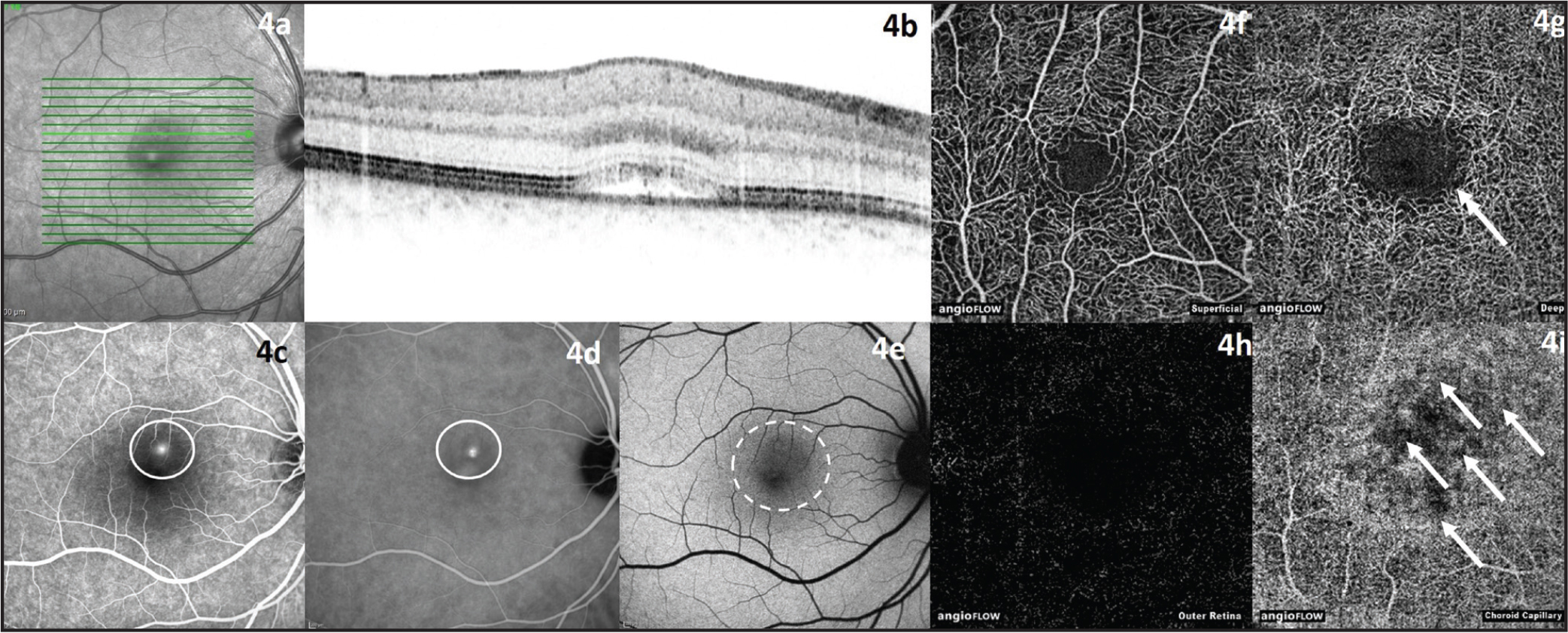 Right eye of a 29-year-old male patient with acute central serous chorioretinopathy. (A, B) Infrared and optical coherence tomography (OCT) image with retinal detachment. (C) Fundus autofluorescence image with leakage point (white circle). (D) Indocyanine green angiography image with leakage point (white circle). (E) Fundus autofluorescence image with discernable retinal detachment (white dashed circle). (F) OCT angiography (OCTA) image of superficial retinal vessels. (G) OCTA image of deep retinal vessels with central rarefication of vessels and discernable area with detached retina (white arrow). (H) OCTA image of outer retina. (I) OCTA image of choroid capillaries with abnormal flow pattern (white arrows).