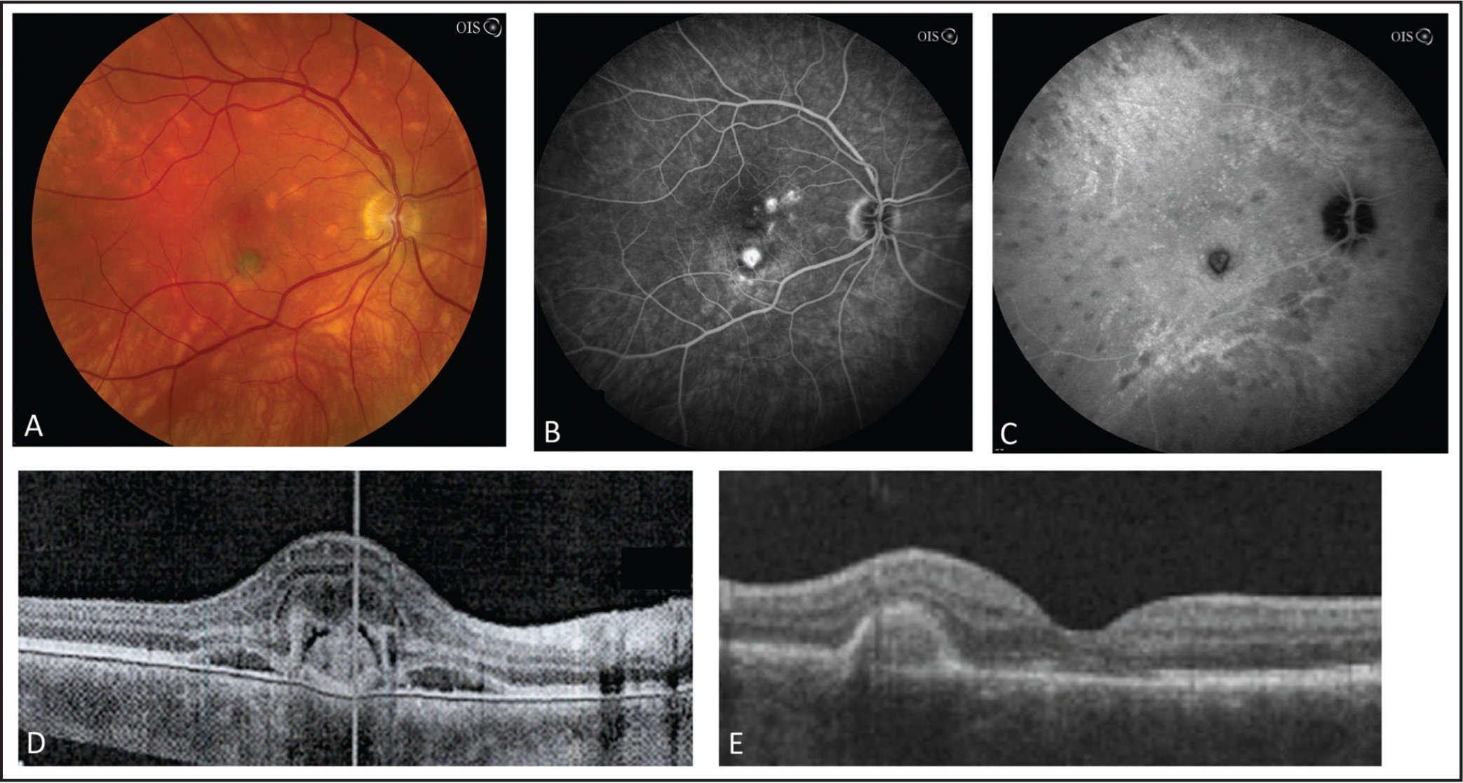 Fundus photography, fluorescein angiography (FA), indocyanine green (ICG) angiography, and spectral-domain optical coherence tomography (SD-OCT) imaging for Patient 3. Fundus photography (A) FA with late phase leakage consistent with choroidal neovascularization (B). ICG confirmed the presence of active choroidal lesions consistent with birdshot (C). SD-OCT showed subretinal fluid and ellipsoid layer disruption (D). Following five injections of bevacizumab and initiation of methotrexate with an oral prednisone taper, complete resolution of the subretinal fluid and only a residual pigment epithelial detachment is seen by SD-OCT (E).