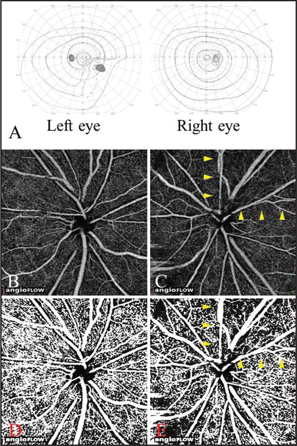Visual field (VF) findings and optical coherence tomography (OCT) angiograms in Case 3. A 57-year-old female patient with meningioma. The patient underwent tumor resection 40 months prior to this study. VF findings of Goldmann perimetry (A). A lower nasal VF defect was detected in the left eye. OCT angiograms of the disc of the right eye (B) and of the left eye (C). The retinal perfusion was decreased in the upper temporal retina (arrowhead) in the left eye. Binarized OCT angiograms of the disc of the right eye (D) and of the left eye (E). The retinal perfusion was decreased in the upper temporal retina (arrowhead) corresponding to the quadrants of the VF defects in the left eye.