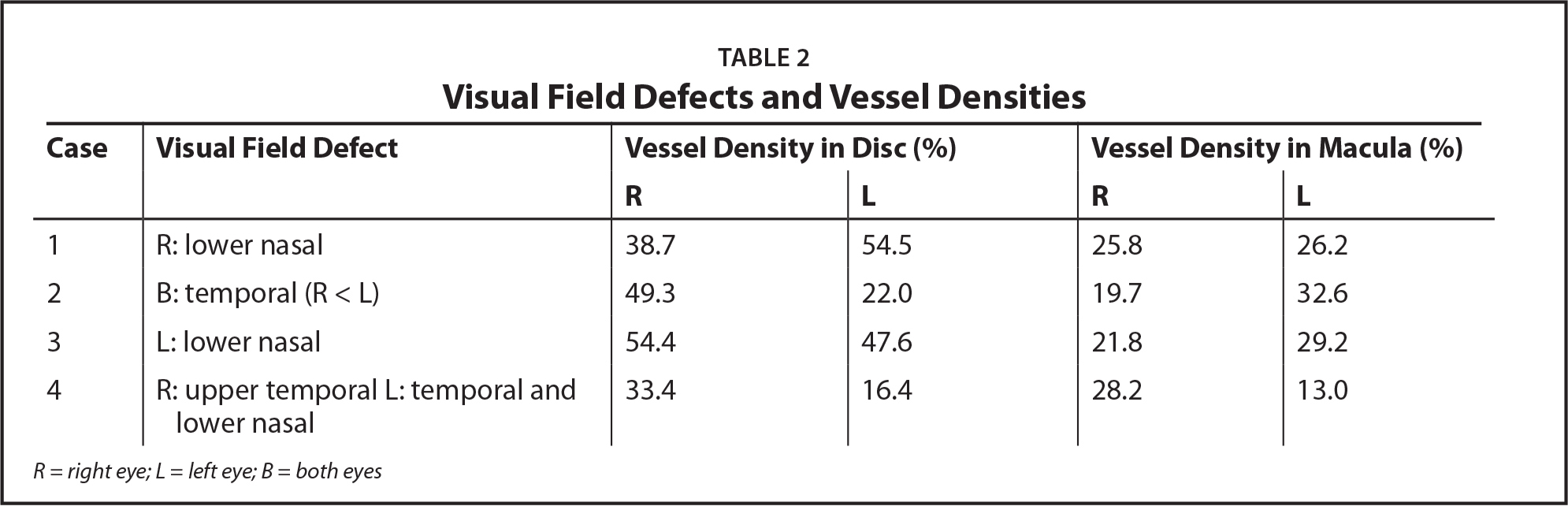 Visual Field Defects and Vessel Densities