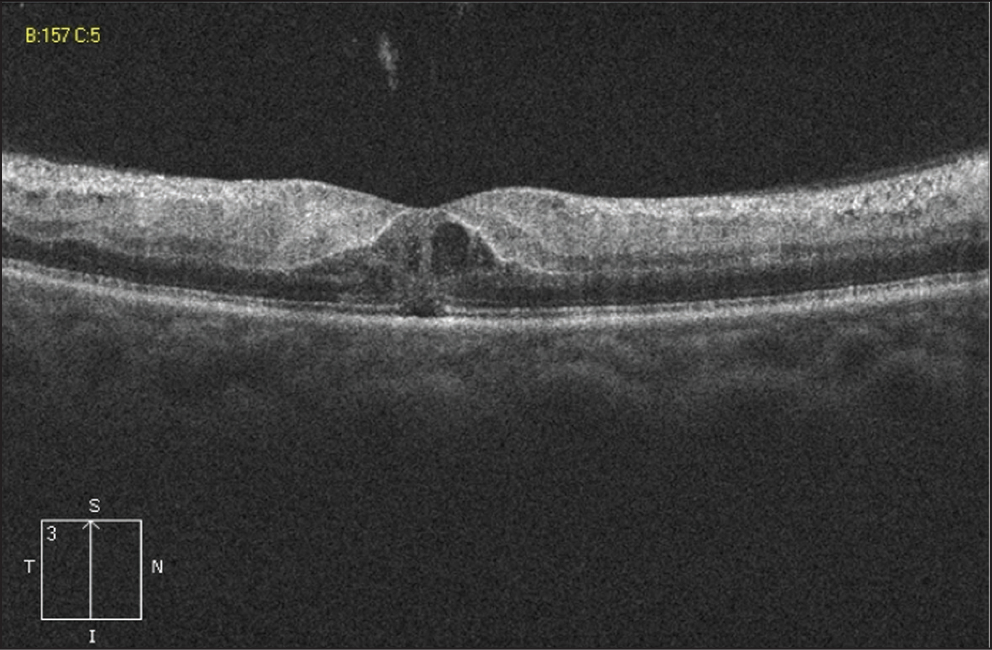Optical coherence tomography of the right eye during the fourth postoperative day shows macular edema, characterized by hyperreflectivity of the inner retinal layers, subfoveal retinal detachment, and foveal cysts at the level of the outer nuclear layer.