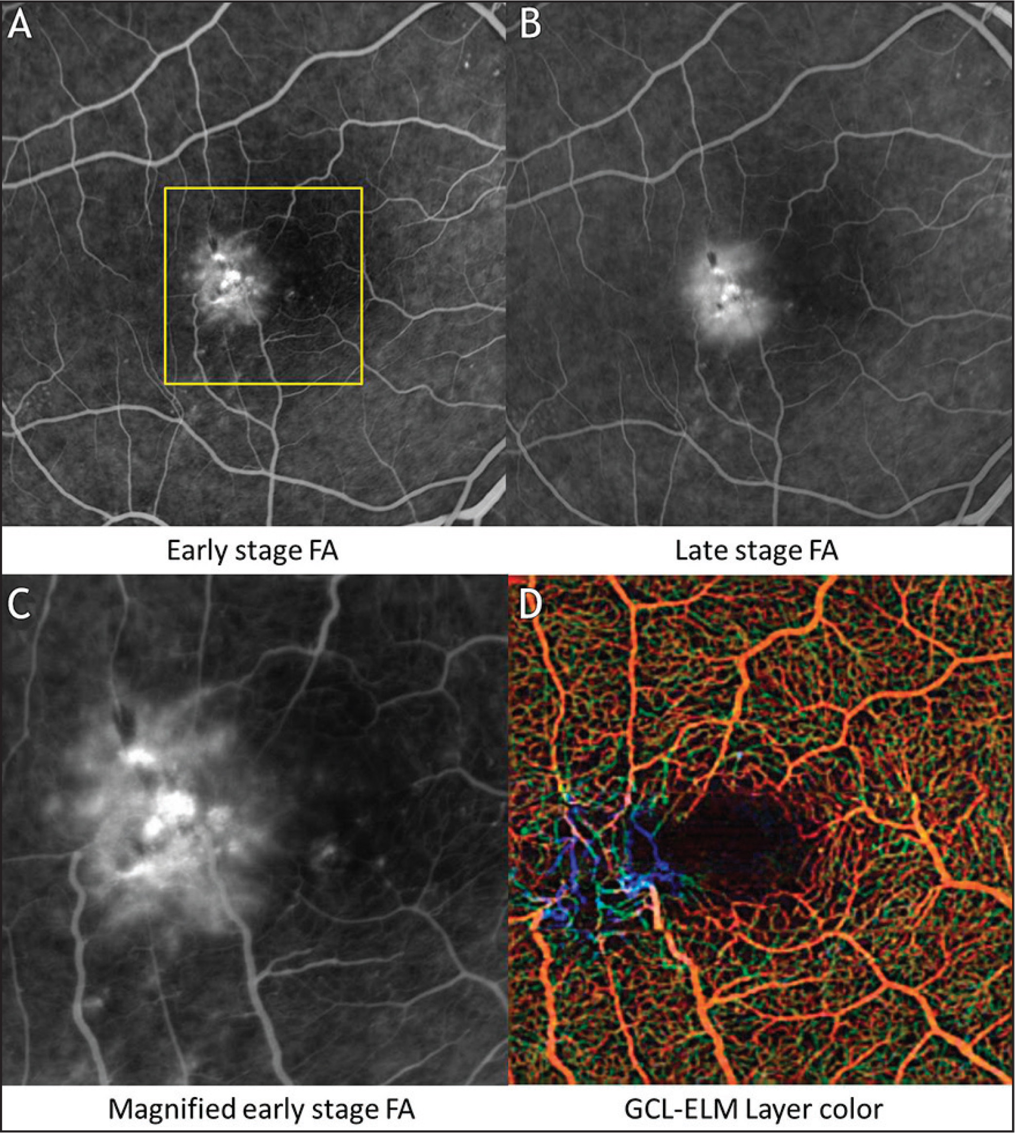 Optical coherence tomography angiography (OCTA) using a modified spectral-domain Cirrus OCT (Angioplex; Carl Zeiss Meditec, Dublin, CA) and fluorescein angiography (FA) images of the right eye of a 62-year-old woman with intermediate, nonproliferative macular telangiectasia type 2. (A) Early-phase FA image shows hyperfluorescence in the temporal juxtafoveal region. (B) Late-phase FA image with increased hyperfluorescence and leakage. (C) Magnified early stage FA image shows a detailed view of the hyperfluorescent area that represents the telangiectatic microvasculature. (D) Composite en face color-coded flow OCTA image demonstrates abnormalities that correspond well to the microvascular abnormalities seen in the early stage FA image. GCL-ELM = ganglion cell layer + external limiting membrane.