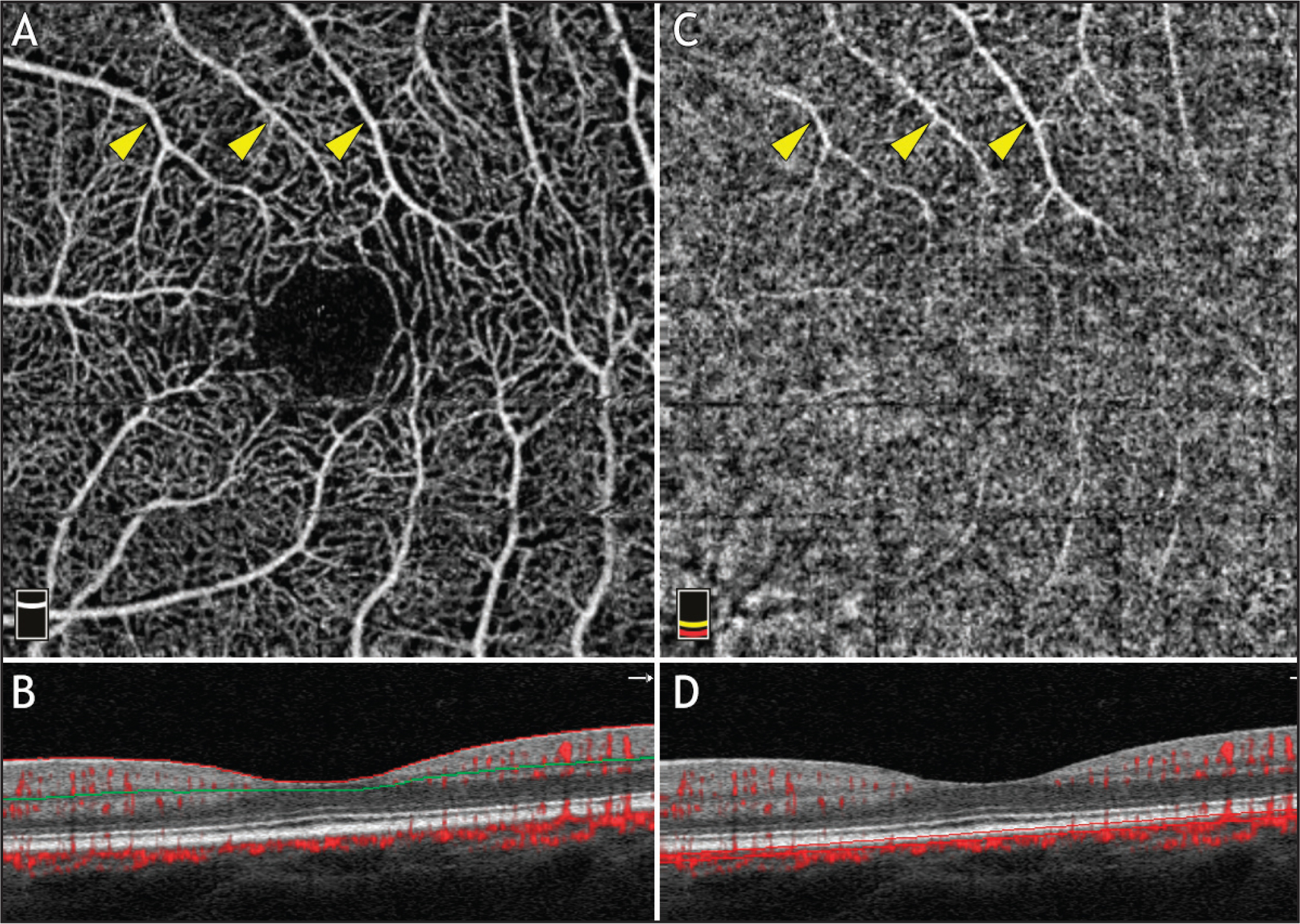 Optical coherence tomography angiography (OCTA) (Avanti; Optovue, Fremont, CA) projection artifacts. (A) Superficial plexus segmentation shows normal vasculature (yellow arrowheads). (B) OCT B-scan with superficial segmentation delineated by the red and green lines. (C) Choriocapillaris (CC) segmentation shows projection artifact from superficial vessels (yellow arrowheads). (D) OCT B-scan with CC segmentation delineated by two parallel red lines.