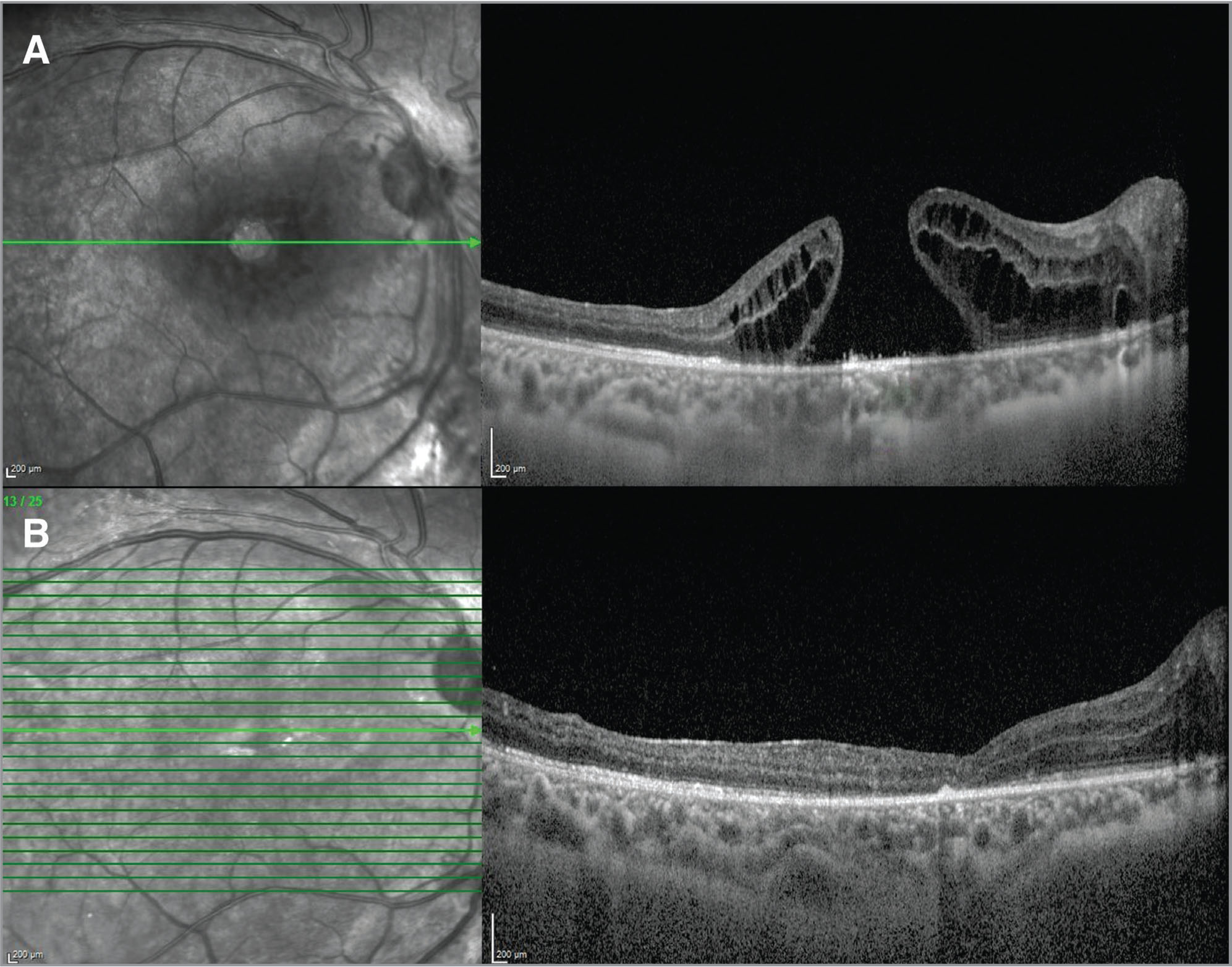 (A) Preoperative optical coherence tomography sections of the 19-year-old patient. Preoperative hole base diameter was 2,200 μm. (B) At postoperative month 6, the hole remained closed. Preoperative best spectacle-corrected visual acuity (BSCVA) was less than 20/200. BSCVA at 6 months postoperatively was 20/200.