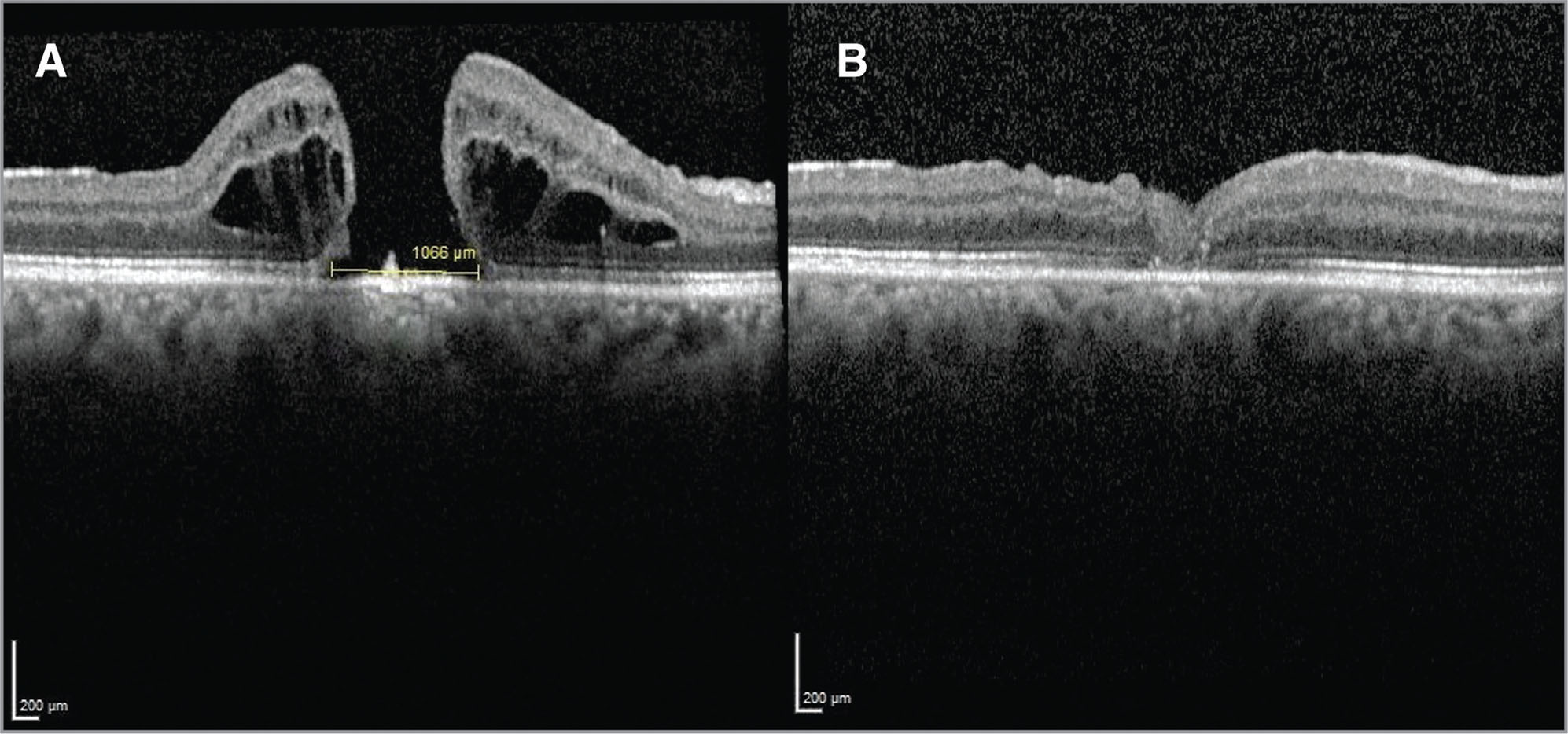 (A, B) The preoperative and postoperative optical coherence tomography sections of a 73-year-old patient with persistent macular hole. Preoperative base diameter was 1,066 μm.