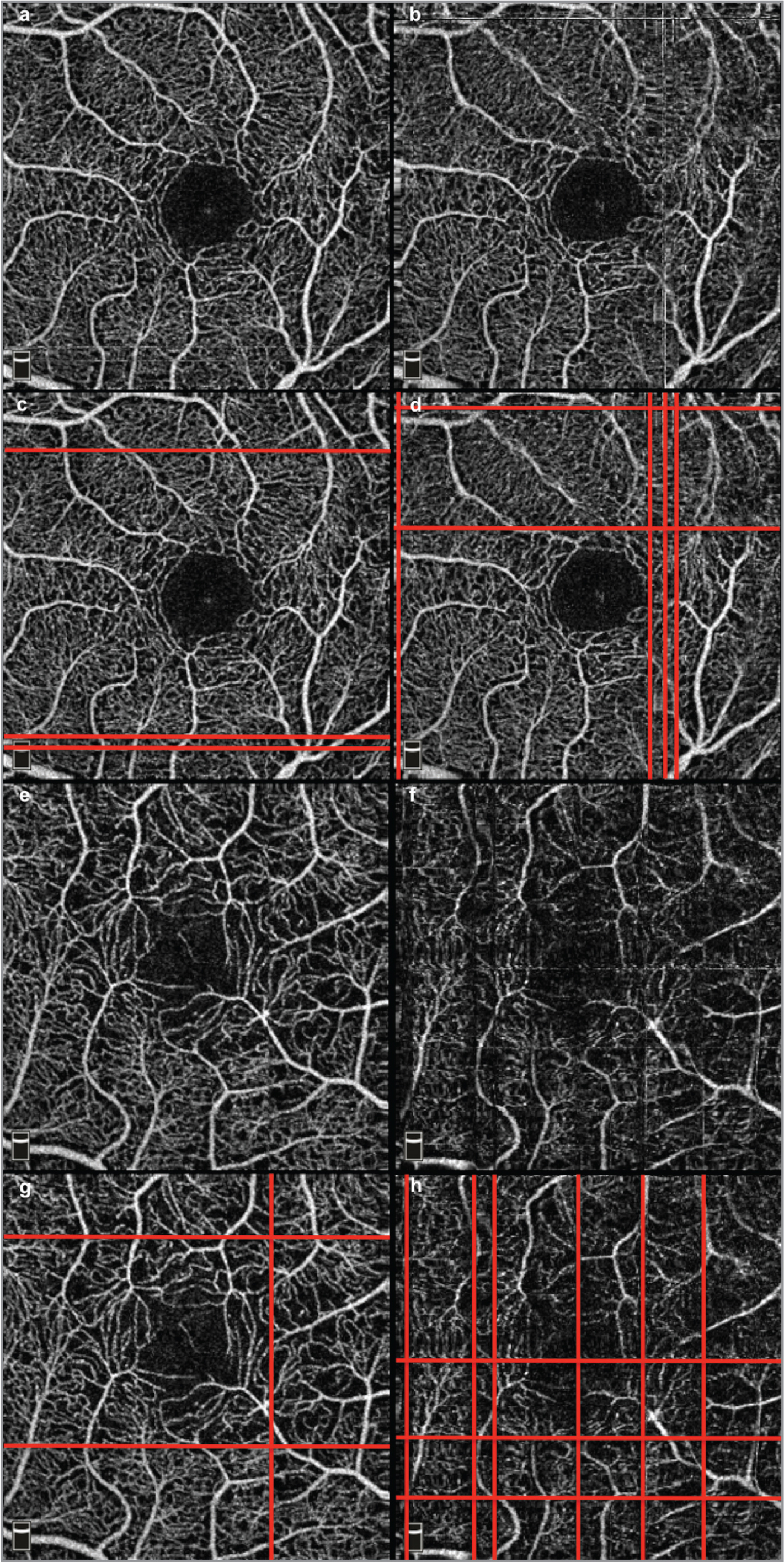 Examples of artifacts with (a, c, e, g) and without eye-tracking (b, d, f, h), in a healthy subject (a, b c, d) and a patient with age-related macular degeneration (e, f, g, h). Red lines highlight the motion artifacts.
