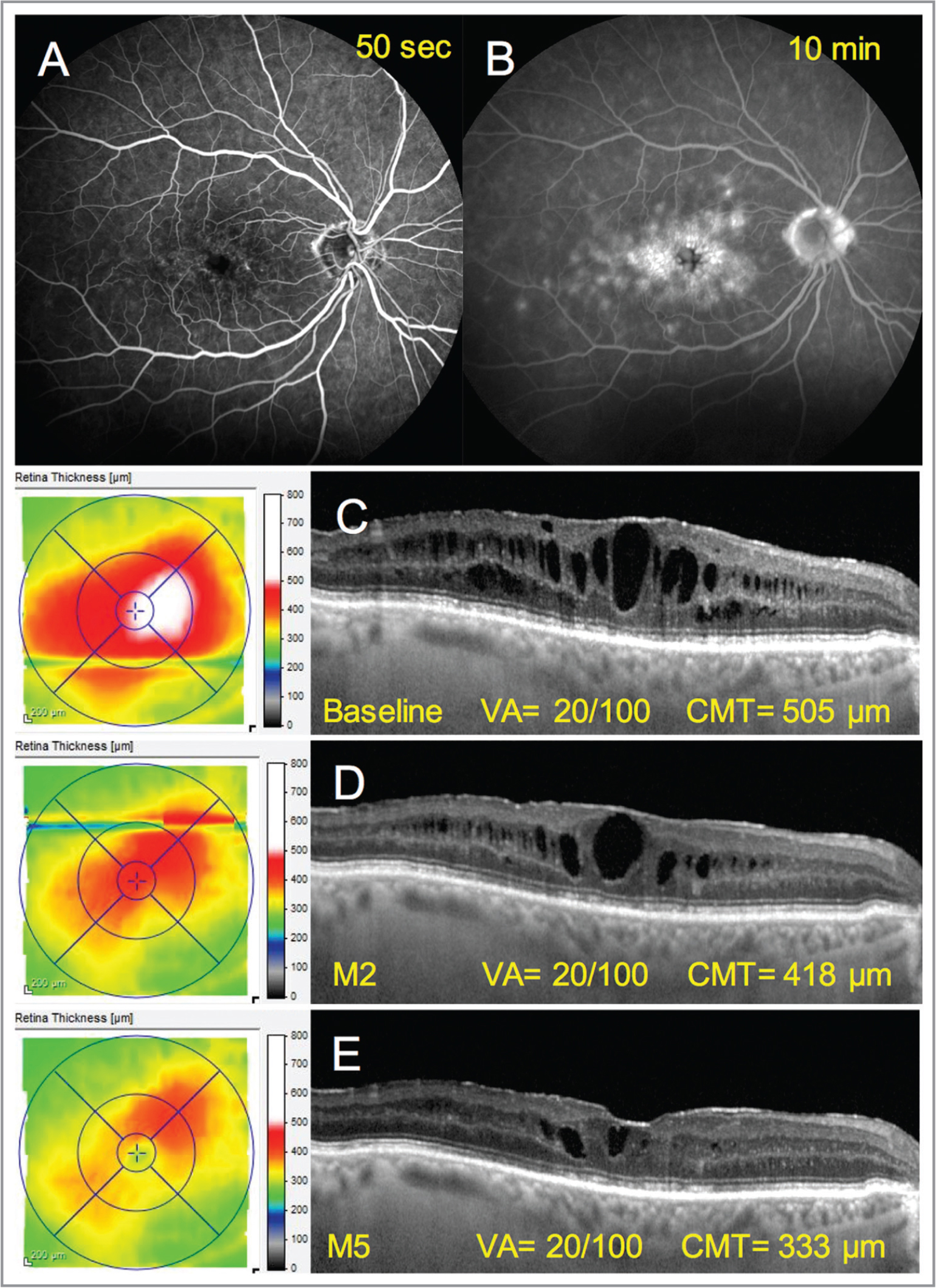 Anatomical improvement in an 80-year-old man treated by oral spironolactone and topical dexamethasone for refractory postoperative macular edema 18 months after pars plana vitrectomy, dislocated intraocular lens removal, and intraocular lens suture to the sclera. (A, B) Fluorescein angiography showed inner and outer blood-retinal barrier rupture manifesting as fine paramacular telangiectasia (A) with late filling of cystoid cavities (B), and diffuse hyperfluorescent spots on late frames (B), respectively. There was a late hyperfluorescence at the disc (B) as usually observed in Irvine-Gass syndrome. (C) Optical coherence tomography at presentation showing marked, diffuse cystoid macular edema and a fine epiretinal membrane at the inner retinal surface. A few intraretinal hyperreflective dots were visible. (D) Two months after combined therapy associating oral spironolactone (50 mg/day) and topical dexamethasone (four times/day) was initiated, there was a clear reduction of macular edema. (E) Three months after tapering of dexamethasone drops at three times/day, macular edema further improved, but visual acuity remained unchanged. The square-shaped morphology of residual hyporeflective spaces suggests possible degenerative cavities. M = month; VA = visual acuity; CMT = central macular thickness.
