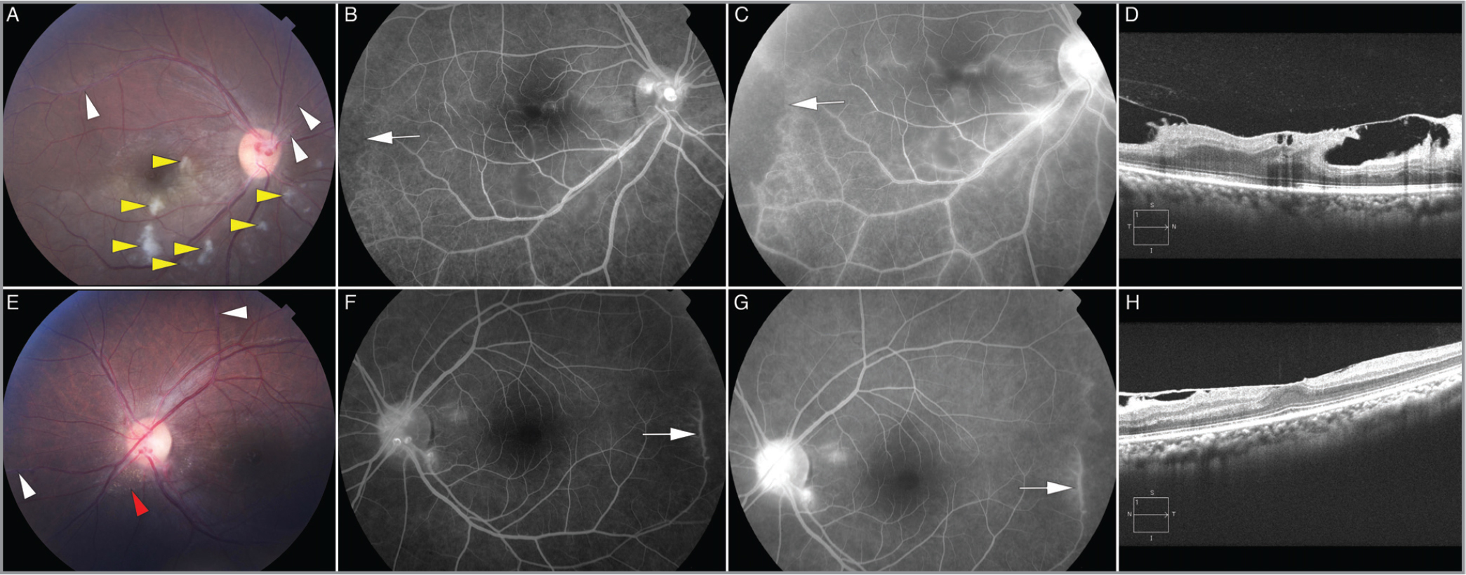Multimodal retinal imaging at the first visit in May 2009. (A) Color fundus photograph of the right eye showing cotton-wool spots (yellow arrow heads), retinal whitening, retinal vein sheathing (white arrow heads), and aneurysmal dilations at the optic disc. (B,C) Intermediate-phase and late-phase fluorescein angiography (FA) of the right eye showing evidence of a branch retinal artery occlusion of the inferior temporal retinal artery, vessel tortuosity (white arrow), and disc hyperfluorescence. (D) Spectral-domain optical coherence tomography (SD-OCT) B-scan centered on the fovea of the right eye showing an epiretinal membrane (ERM) and vitreomacular traction. (E) Color fundus photograph of the left eye showing an ERM at the macula, hard exudates in the peripapillary region (red arrow head), retinal vein sheathing (white arrow heads), and aneurysmal dilations at the optic disc. (F,G) Mid-phase and late-phase FA of the left eye showing vessel tortuosity, staining consistent with vasculitis (white arrow), and disc hyperfluorescence. (H) SD-OCT B-scan centered on the fovea of the left eye shows an ERM and vitreomacular traction.