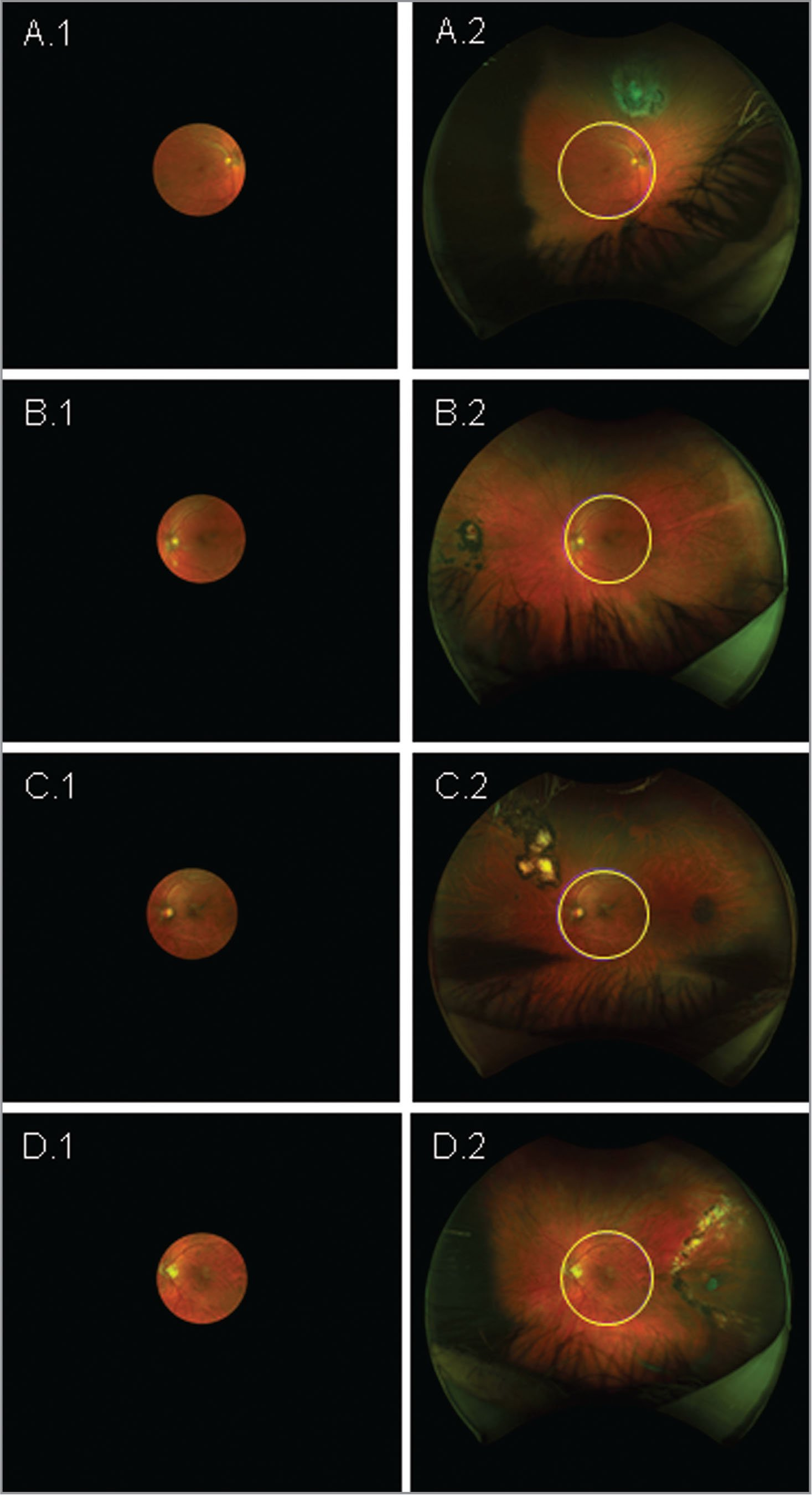 (A1, B1, C1, D1) Single-field fundus images of four subjects. (A2, B2, C2, D2) Corresponding ultra-widefield images with mask/grid outlines showing peripheral retinal pathologies that were not visible on the single-field fundus images ([A2] Choroidal nevus with drusen/possible melanoma; [B2] Chorioretinal scar; [C2] Chorioretinal scars; [D2] Horseshoe tear and laser scars).