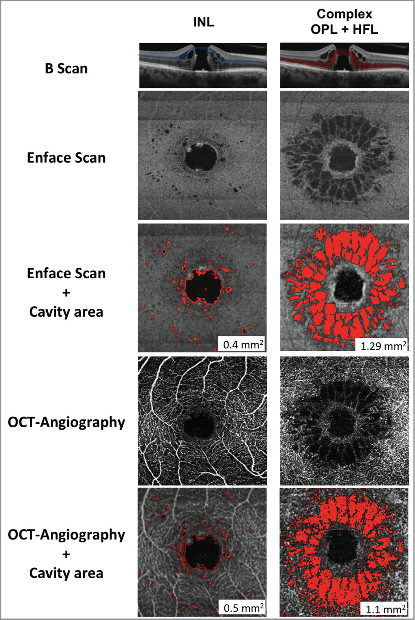Automated identification of hyporeflective spaces in the inner nuclear layer (INL) and in the complex formed by the outer plexiform layer (OPL) and Henle fiber layer (HFL) on en face scan and optical coherence tomography angiography (OCTA). (Top row) OCT B-scan displaying the outline of the plane of the en face section (Blue: INL; Red: OPL + HFL). (Second row) En face OCT showing the distinct patterns of hyporeflective spaces in the INL and the complex of the OPL and HFL. (Third row) Automated detection of the cavity area from the en face images (in red) by Image J software. (Fourth row) OCTA showing the distinct patterns of hyporeflective spaces in the INL and the complex of the OPL and HFL. (Last row) Automated detection of the cavity area from the OCTA images (in red) by Image J software.