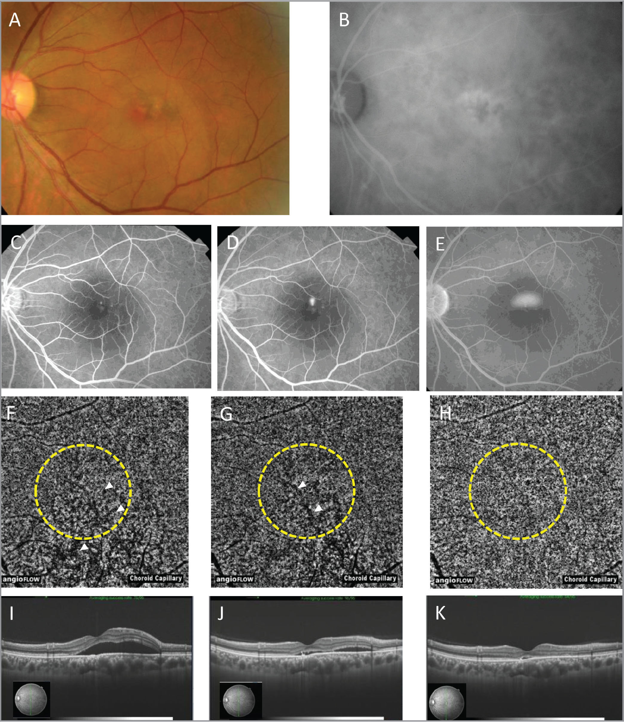 A;Multimodal imaging of the left eye of Case 3. (A) Color fundus photograph. (B) Middle phase of indocyanine green angiography. (C–E) Fluorescein angiography in early to middle phase (C), middle phase (D), and late phase (E). (F–H) Optical coherence tomography angiography (OCTA) before photodynamic therapy (PDT) (F), 1 week after PDT (G), and 1 month after PDT (H). The PDT spot area is encircled by yellow dots. Before PDT, focal high-intensity lesion indicating abnormal choroidal vessels, and flow void lesion at the choriocapillaris layer are observed (F). Flow void lesion increases at 1 week after PDT comparing with before PDT. The lesion decreases at 1 month (G and H). Before and 1 week after PDT, OCTA depicts relatively large choroidal vessels in the macular area and inferior to the macula (white arrow heads). These findings are diminished progressively at 1 week and 1 month after PDT (G, H). (I–K) OCT before PDT (I), 1 week after PDT (J), and 1 month after PDT (K).