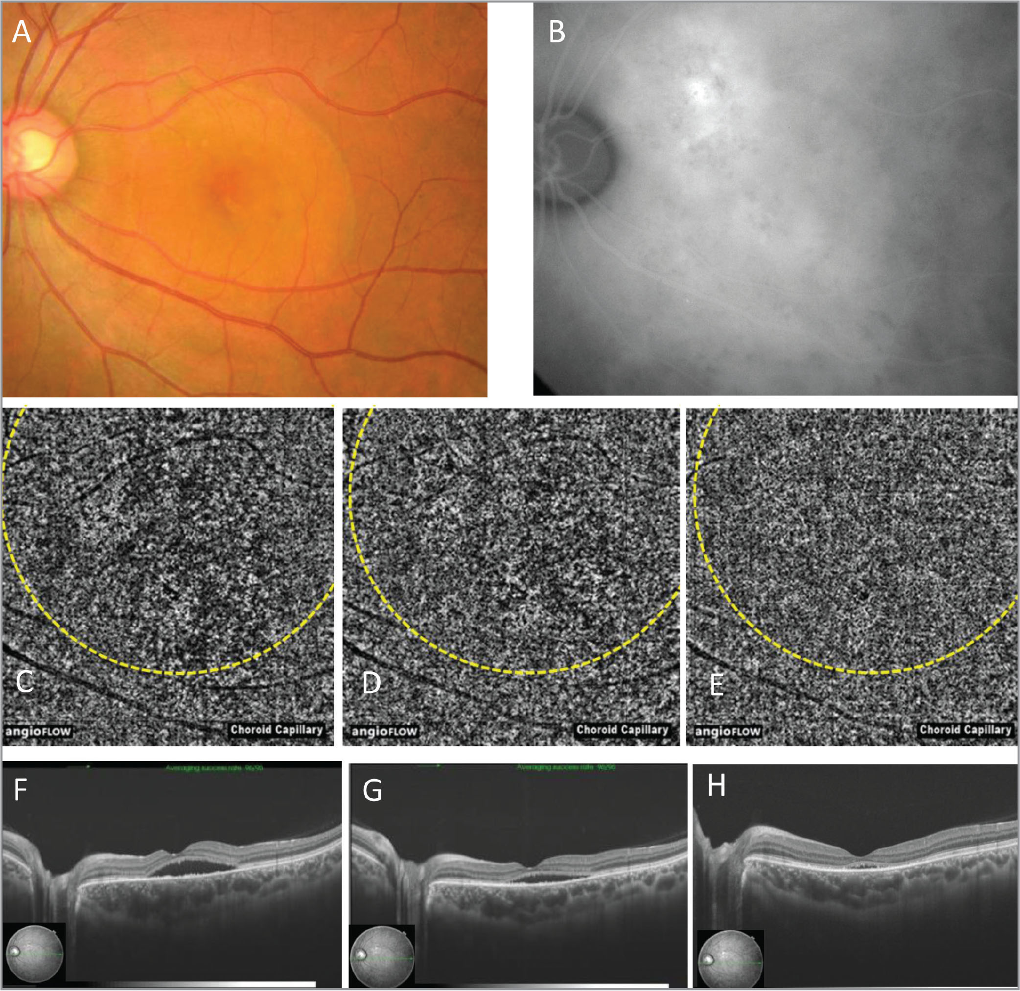 A;Multimodal imaging of the left eye of Case 4. (A) Color fundus photograph. (B) Middle phase of indocyanine green angiography. (C–E) Optical coherence tomography angiography (OCTA) before photodynamic therapy (PDT) (C), 1 week after PDT (D), and 1 month after PDT (E). The PDT spot area is encircled by yellow dots. Before PDT, focal high-intensity lesion indicating abnormal choroidal vessels and flow void lesion at the choriocapillaris layer are observed (C). These findings are diminished progressively at 1 week and 1 month after PDT (D, E). (F–H) OCT before PDT (F), 1 week after PDT (G), and 1 month after PDT (H). In this case, fluorescein angiography was not conducted due to fluorescein allergy.