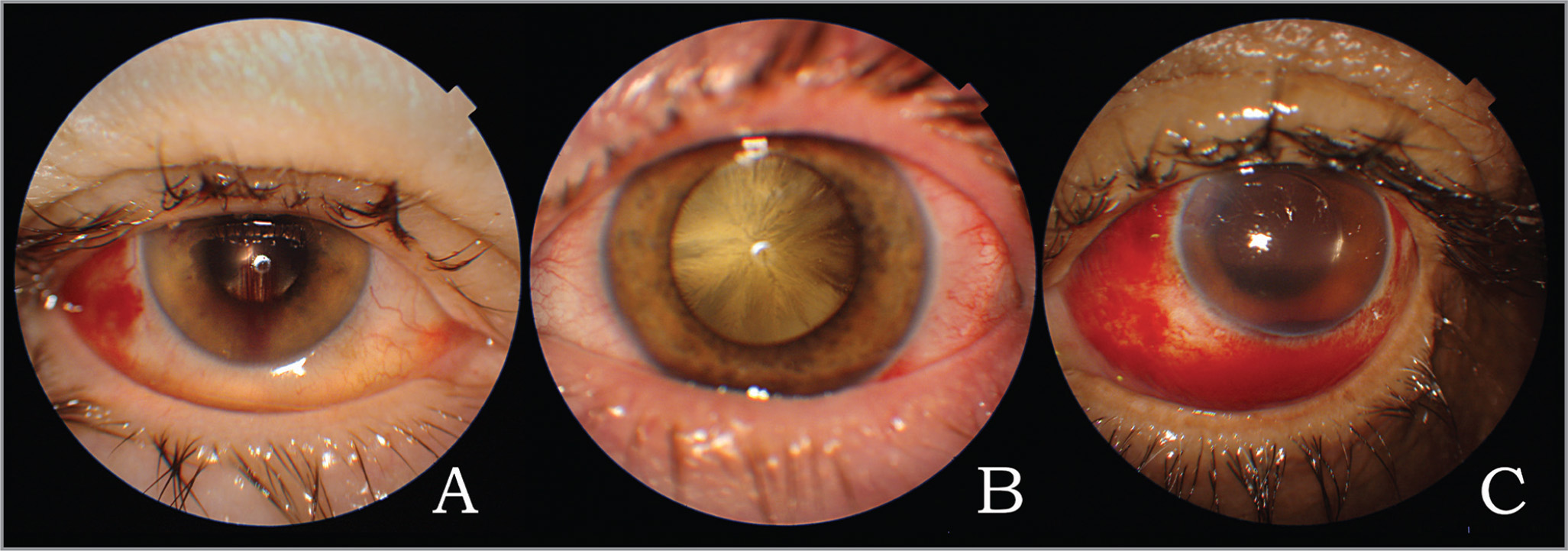 Anterior color photography of eyes with unsuccessful swept-source optical coherence tomography scans. (A) Low vitreous gas fill. (B) Dense cataract. (C) Hyphema.