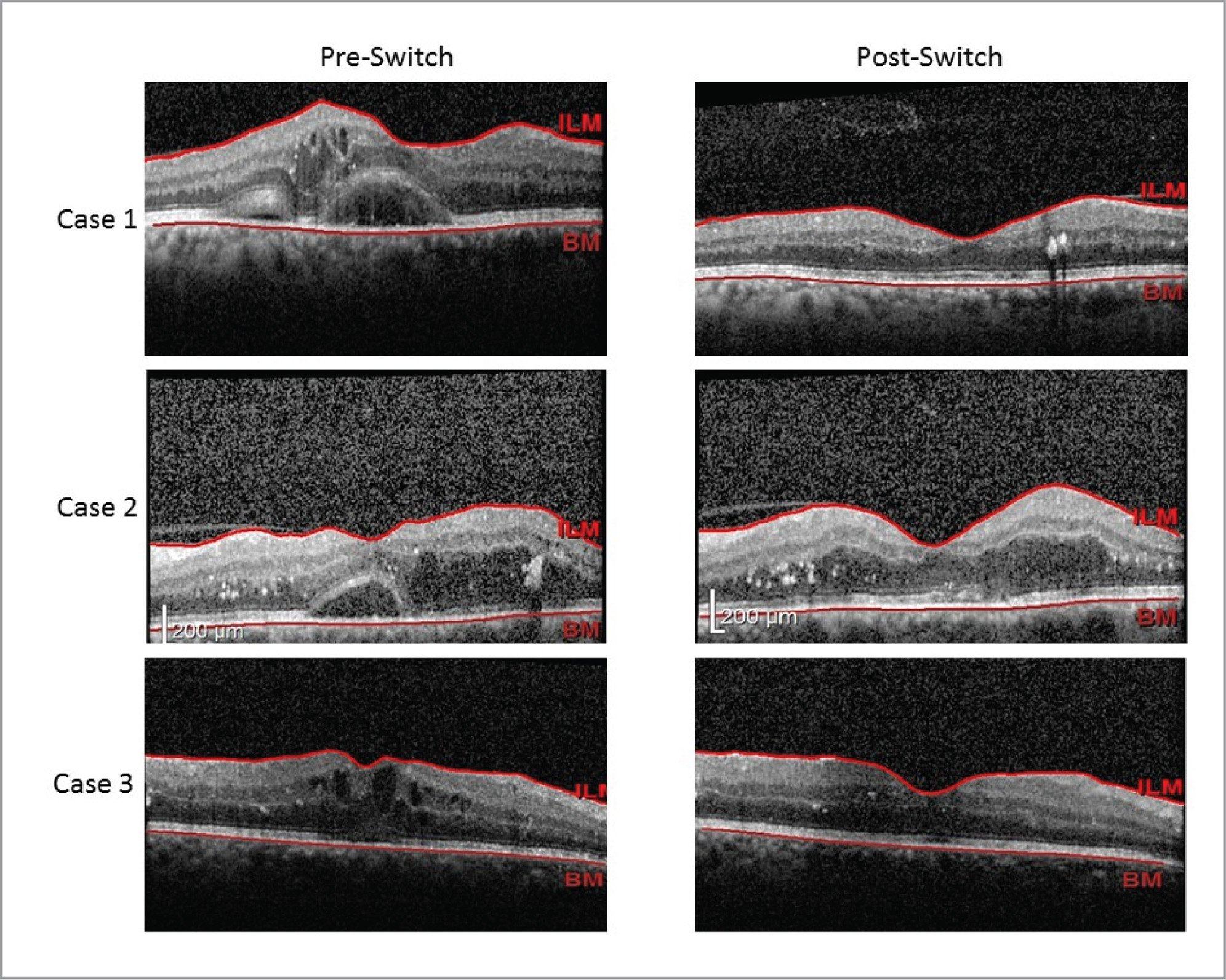 Figure illustrating three cases with refractory diabetic macular edema who were switched to ziv-aflibercept.