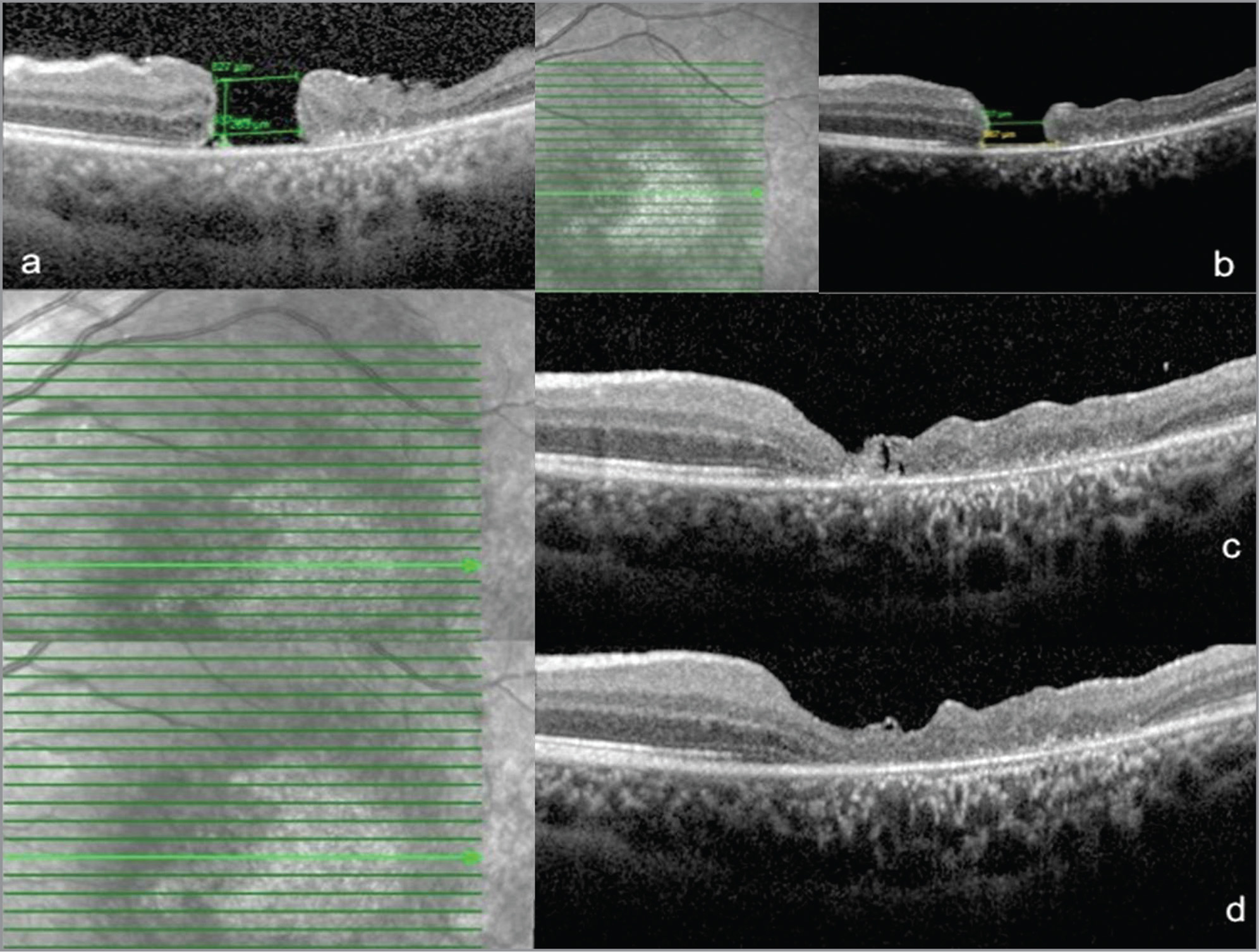 Complicated macular hole (MH) secondary to submacular hemorrhage in a 19-year-old woman with acute myeloid leukemia (Case 2). Patient could only be operated on 2 years after presentation because of thrombocytopenia and general health issues pertaining to her systemic illness. (A) At presentation: Optical coherence tomography (OCT) showed atrophic edges of MH without any cystoid changes and atrophic temporal outer retinal layers. (B) After primary surgery: OCT showed persistent MH. (C) After free flap surgery (immediate post op): OCT showed closed MH with internal limiting membrane graft. (D) Four months later: OCT showed MH closure with atrophic outer retinal layers. Final best-corrected visual acuity (BCVA) improved to 1.17 logMAR (Snellen 20/320) from her presenting BCVA of 1.8 logMAR (Snellen 20/1,200).
