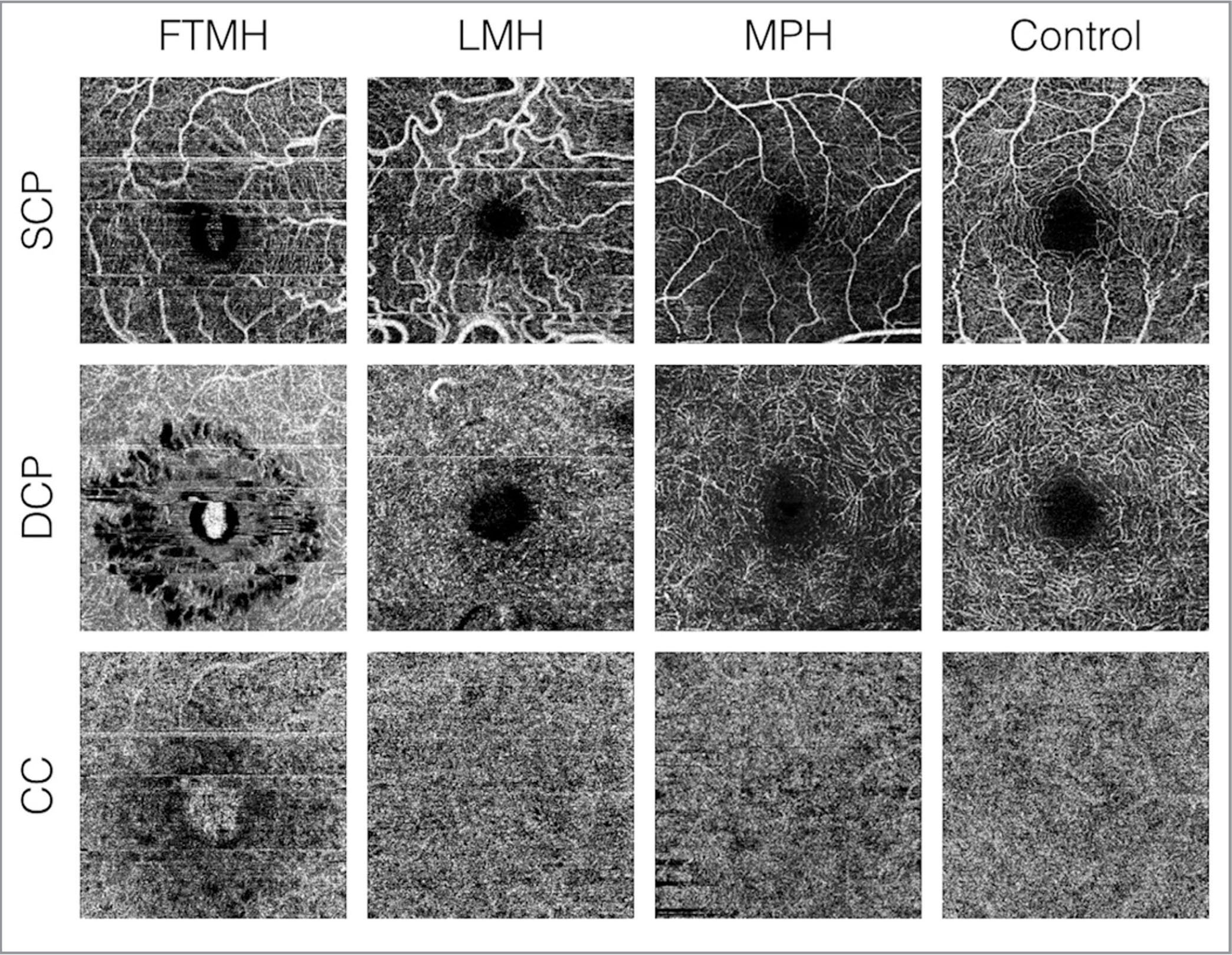 3 Mm X Optical Coherence Tomography Angiography Scans Of The Macula Eyes Affected