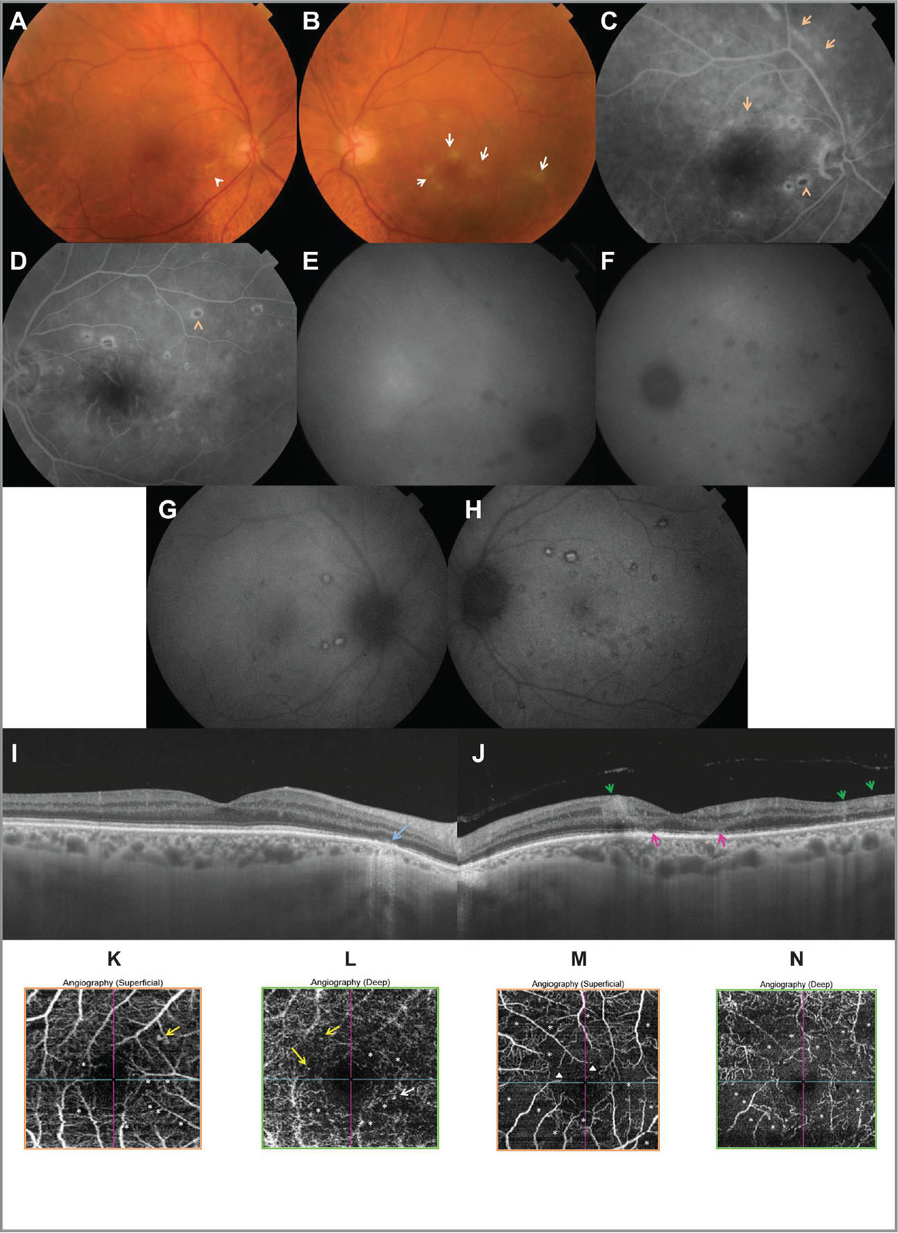(A, B) Fundus photography shows mild nonproliferative diabetic retinopathy with a few retinal hemorrhages and microaneurysms in both eyes, as well as bilateral multiple round atrophic chorioretinal lesions, with central pigmentation in some of them (arrowhead). There are patchy areas of ischemic retinal whitening with arteriolar narrowing and sheathing in the left eye (B) (arrows). (C, D) Mid-phase fluorescein angiograms show bilateral inactive multifocal chorioretinitis with a target-like appearance (orange arrowheads) and linear clustering of chorioretinal lesions (orange arrows). The perifoveal capillary arcade appears to be slightly disrupted in the right eye (C). In the left eye, there was a marked disruption of the perifoveal capillary arcade with enlarged and irregular foveal avascular zone and diffuse staining and leakage of perifoveal arterioles and venules (D). (E, F) Late-phase indocyanine green angiograms show hypofluorescent choroidal spots with more lesions than those appreciated clinically or by fluorescein angiography. (G, H) Fundus autofluorescence shows multiple well-delineated, uniformly hypoautofluorescent or centrally hyperautofluorescent and peripherally hypoautofluorescent spots. (I) Spectral-domain optical coherence tomography (OCT) of the right eye showed focal involvement of the outer retina and retinal pigment epithelium corresponding to a focus of chorioretinitis (blue arrow). In the left eye, there are paracentral focal hyperreflective lesions extending from the inner limiting membrane to the outer plexiform layer corresponding to the patchy areas of ischemic retinal whitening seen clinically (green arrows), and focal alterations of the outer retina (pink arrows) (J). Swept-source OCT angiogram of the right eye shows multiple small, hypointense nonperfusion areas (asterisks) and a few microaneurysms (yellow arrows) and telangiectatic vessels involving both the superficial (K) and deep (L) capillary plexuses. OCT angiogram of the left eye shows extensive well-delineated, hypointense nonperfusion areas (asterisks) and perifoveal capillary arcade disruption (white triangles) in the superficial capillary plexus (M) and larger nonperfusion areas (asterisks), capillary rarefaction, and diffuse capillary network attenuation and disorganization in the deep capillary plexus, with a significant degree of projection artifact from the superficial capillary plexus (N).