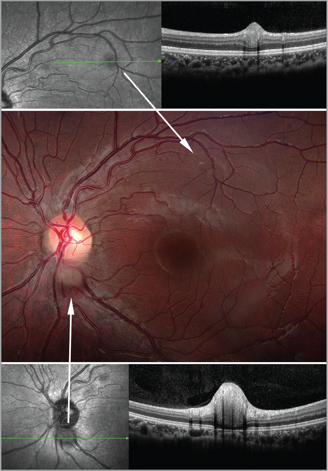 Spectral-domain optical coherence tomography, left eye. A small, subtle, whitish-gray retinal lesion in the superior macula (upper white arrow) appears solid and contiguous with the inner retinal layers. A similar but larger retinal lesion located at the inferior margin of the optic disc (lower white arrow) also appears to arise from inner retinal layers and has replaced much of the outer retinal layers.