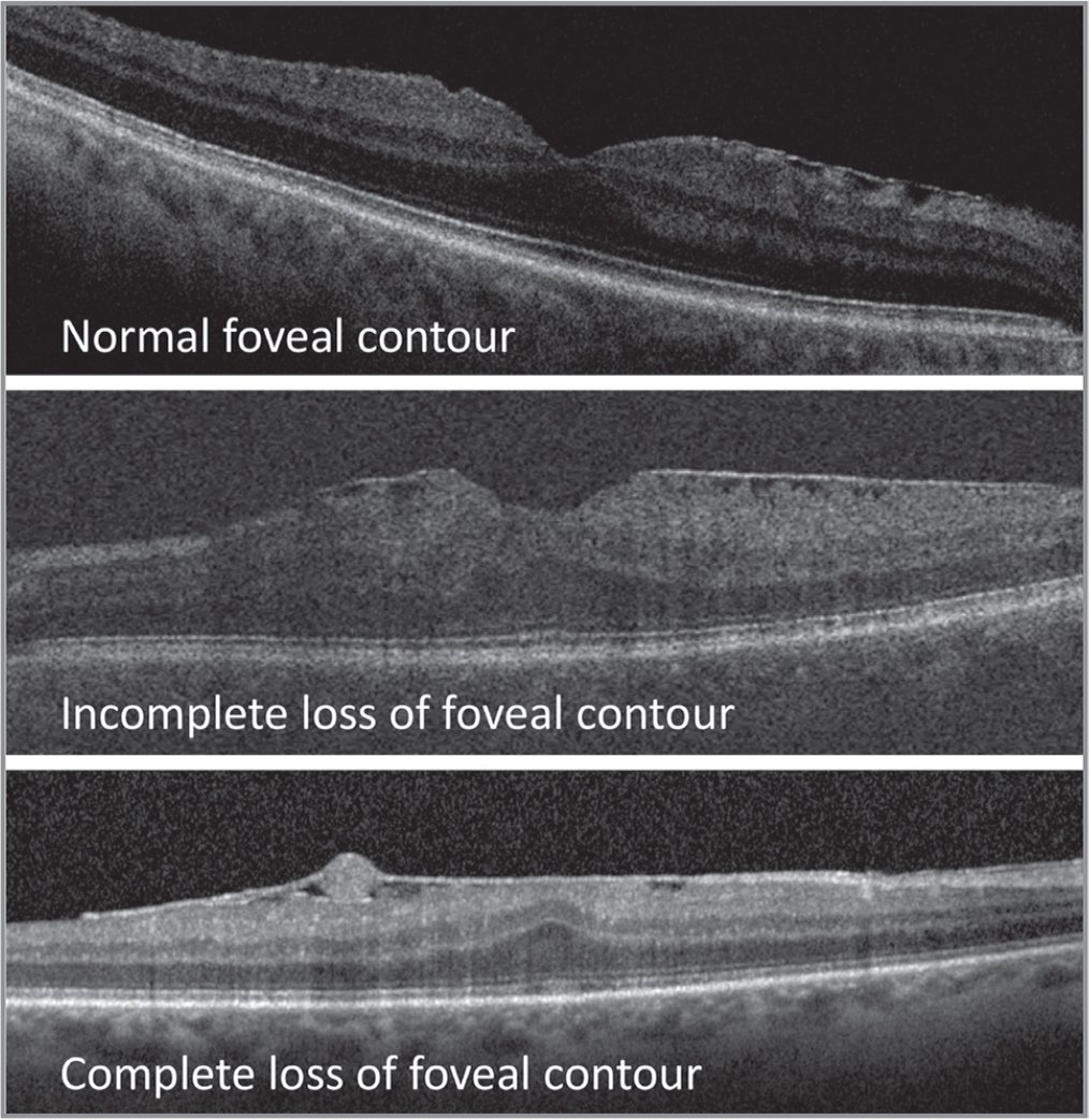 All epiretinal membranes were categorized by the morphology seen on their baseline optical coherence tomography. The three groups included a normal foveal contour, mild/incomplete loss of the foveal contour, and complete loss of the foveal contour.
