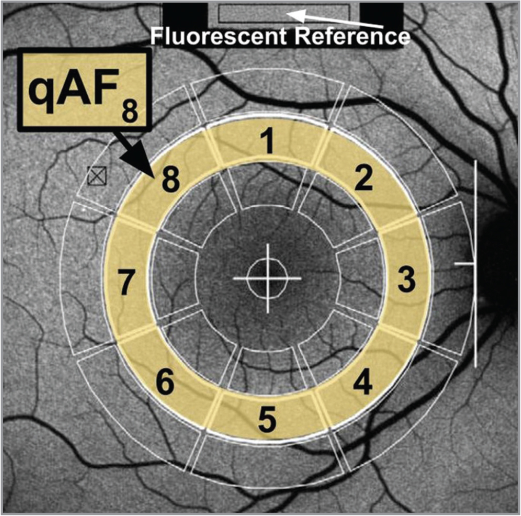 The quantitative fundus autofluorescence (qAF)-8 pattern. The qAF-8 is the mean of the qAF values within the eight numbered zones. This overlay tool should be in the center of the fovea and the border on the temporal edge of the optic disc.