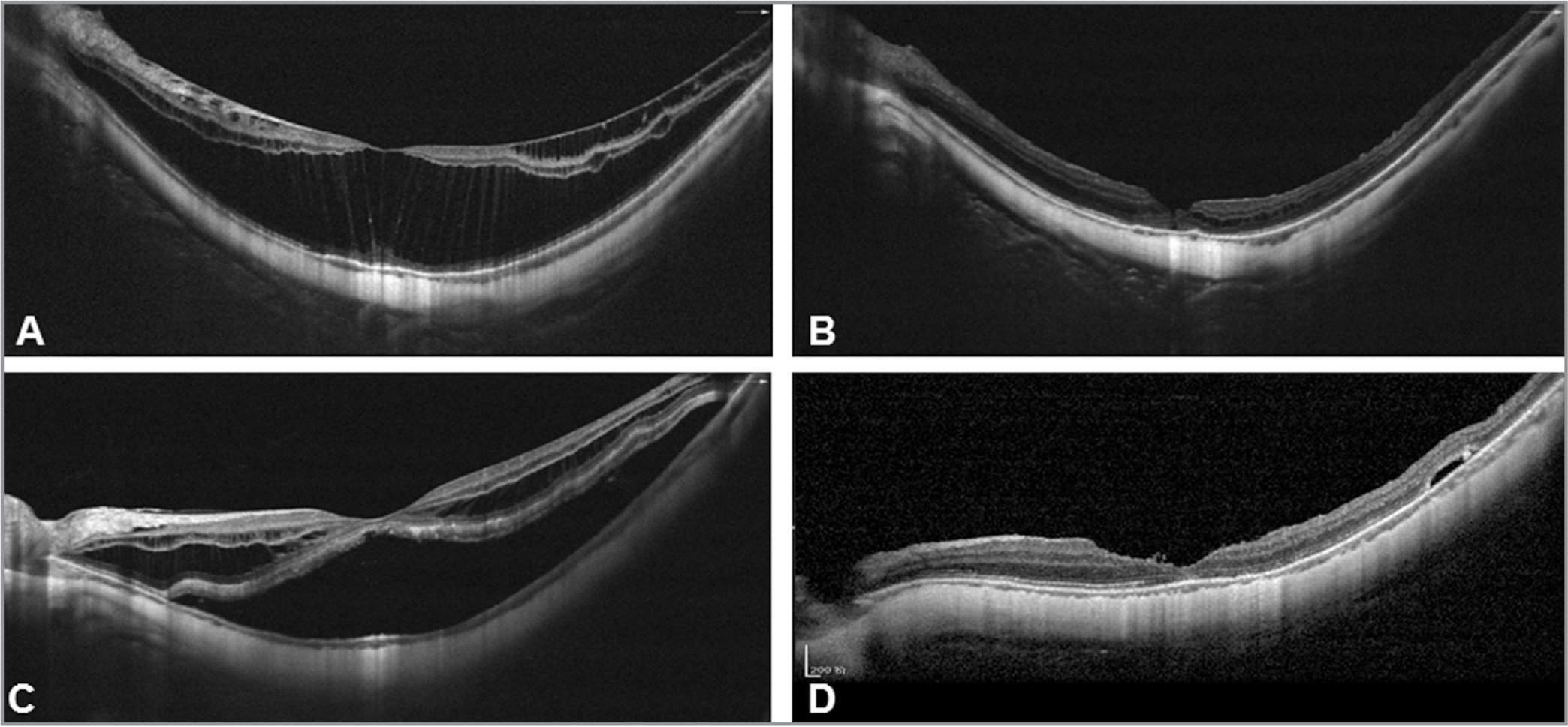 Representative horizontal optical coherence tomography (OCT) images of eyes with myopic foveoschisis (MF) treated by 27-gauge or 25-gauge vitrectomy. Case 1: (A) Preoperative OCT showed foveoschisis. Snellen vision acuity was 20/200. (B) One month after 27-gauge vitrectomy with internal limiting membrane (ILM) peeling and air tamponade, the OCT revealed resolution of foveoschisis. The patient's vision improved to 20/50. Case 2: (C) Preoperative OCT showed foveoschisis with foveal detachment. Snellen vision acuity was 20/200. (D) Six months after 25-gauge vitrectomy with ILM peeling and air tamponade, the OCT revealed resolution of foveoschisis with foveal reattachment. The patient's vision improved to 20/80.