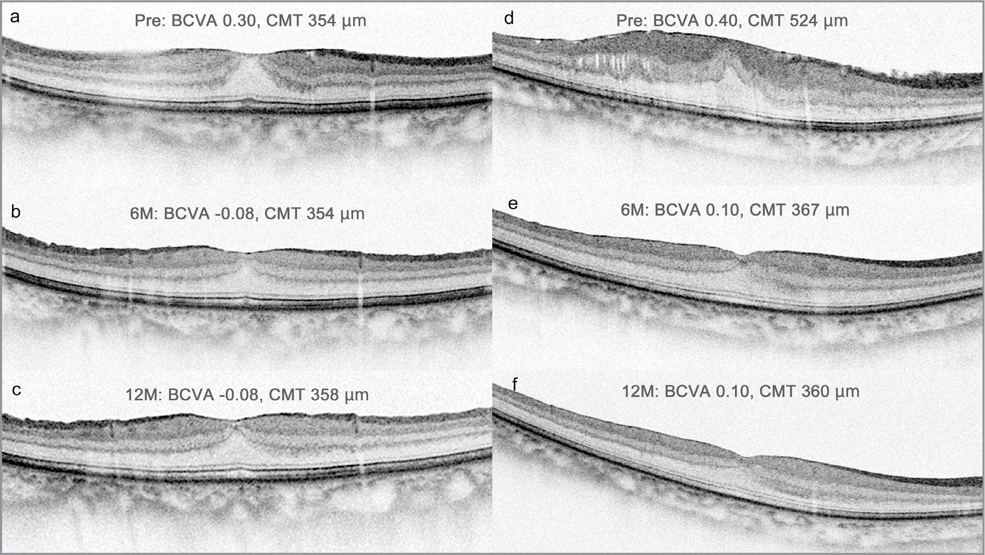 (a–c) Optical coherence tomography (OCT) images of a 65-year-old woman before (a) and at 6 (b) and 12 (c) months after vitrectomy for the repair of an epiretinal membrane (ERM) without an ectopic inner foveal layer (EIFL). Best-corrected visual acuities (BCVAs) in logarithm of the minimum angle of resolution (logMAR) units before and at 6 and 12 months after vitrectomy were 0.30, −0.08, and −0.08, respectively. Her central macular thickness (CMT) measurements were 354 µm, 354 µm, and 358 µm before and at 6 and 12 months after vitrectomy, respectively. (d–f) OCT images of a 54-year-old woman before (d) and at 6 (e) and 12 (f) months after vitrectomy to repair an ERM with an EIFL. The EIFL resolved postoperatively (e and f). BCVAs in logMAR units before and at 6 and 12 months after vitrectomy were 0.40, 0.10, and 0.10, respectively; CMTs measured 524 µm, 367 µm, and 360 µm, respectively.