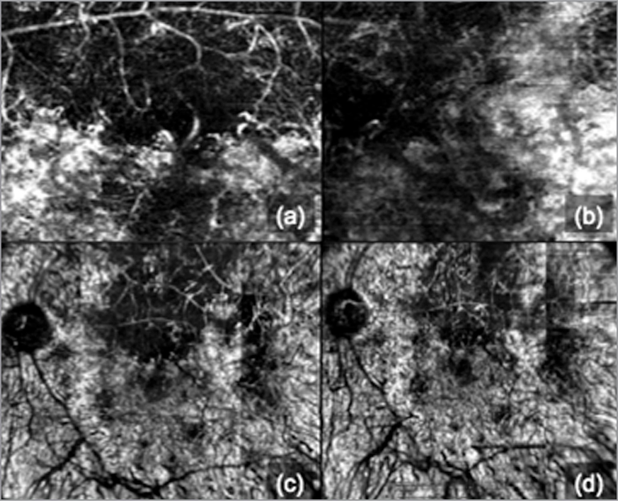 (a) En face optical coherence tomography angiography (OCTA) image encompassing 3 mm × 3 mm area (10° × 10° field of view) showing a large area of flow void with few unmasked medium and large sized choriocapillaris. (b) En face OCTA image encompassing 3 mm × 3 mm area (10° × 10° field of view) of same subject in healing phase at the level of retinal pigment epithelium-Bruch's membrane showing a decreased area of large area of flow void with unmasked medium and large sized choriocapillaris. (c) Panoramic OCTA en face image of the choriocapillaris layer encompassing 12 mm × 9 mm area (40° × 30°) with similar resolution as of 3 mm × 3 mm cube (corresponding to image a) showing the large flow void areas or areas of decreased decorrelation signal with few unmasked medium and large sized choriocapillaris. (d) Panoramic OCTA en face image of the choriocapillaris layer encompassing 12 mm × 9 mm area (40° × 30°) with similar resolution as of 3 mm × 3 mm cube (corresponding to image b) showing a marked decrease / reduction in large flow void areas or areas of decreased de-correlation signal and unmasking of middle and large choriocapillaris architecture due to reperfusion of choriocapillaris.