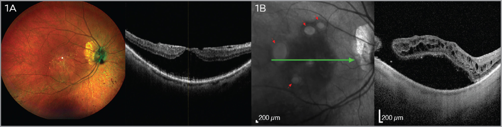 (A) At presentation, multicolor retinography in the right eye illustrates tessellated fundus with epiretinal membrane and in macular optical coherence tomography (OCT). (B) After uneventful pars plana vitrectomy, OCT shows four eccentric macular holes (red arrows) with retinal detachment.