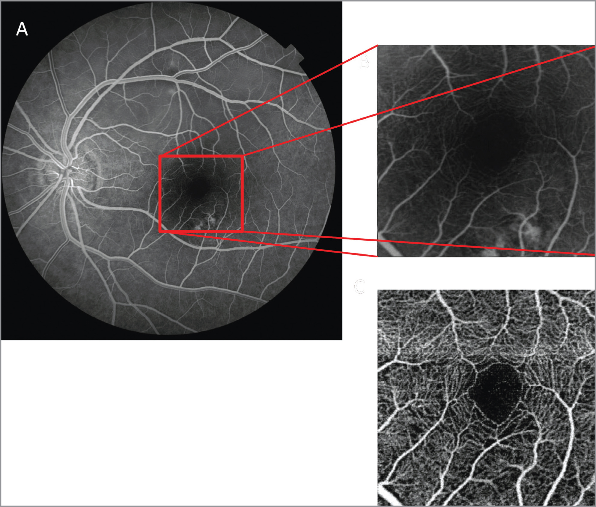 Fundus fluorescein angiography (FFA) image (A) of a study eye. Cropped FFA (B) image around the fovea (shown by the red box in A). Corresponding optical coherence tomography angiography image of the same eye centered on the fovea (C).