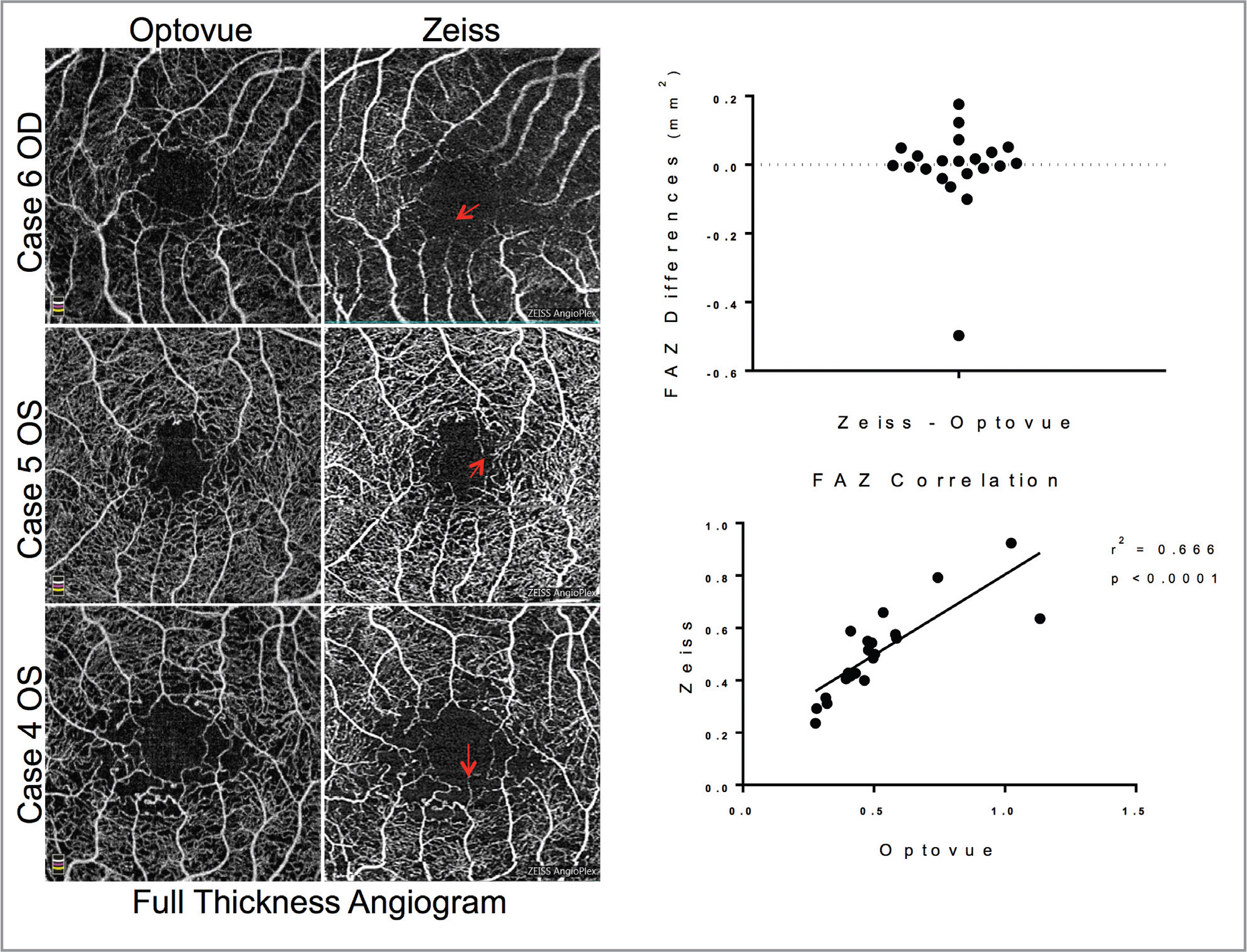 Foveal avascular zone (FAZ) on full retinal thickness angiogram. Representative images of full-thickness angiograms, red arrows pointing to vessel discontinuity along the FAZ border (left). Difference in measured FAZ area between the two instruments for each eye, n = 21 (upper right). Correlation of FAZ areas between the two instruments, line shows a best-fit linear regression with each point representing a single eye plotted against the measured FAZ on each machine, n = 21 (lower right).