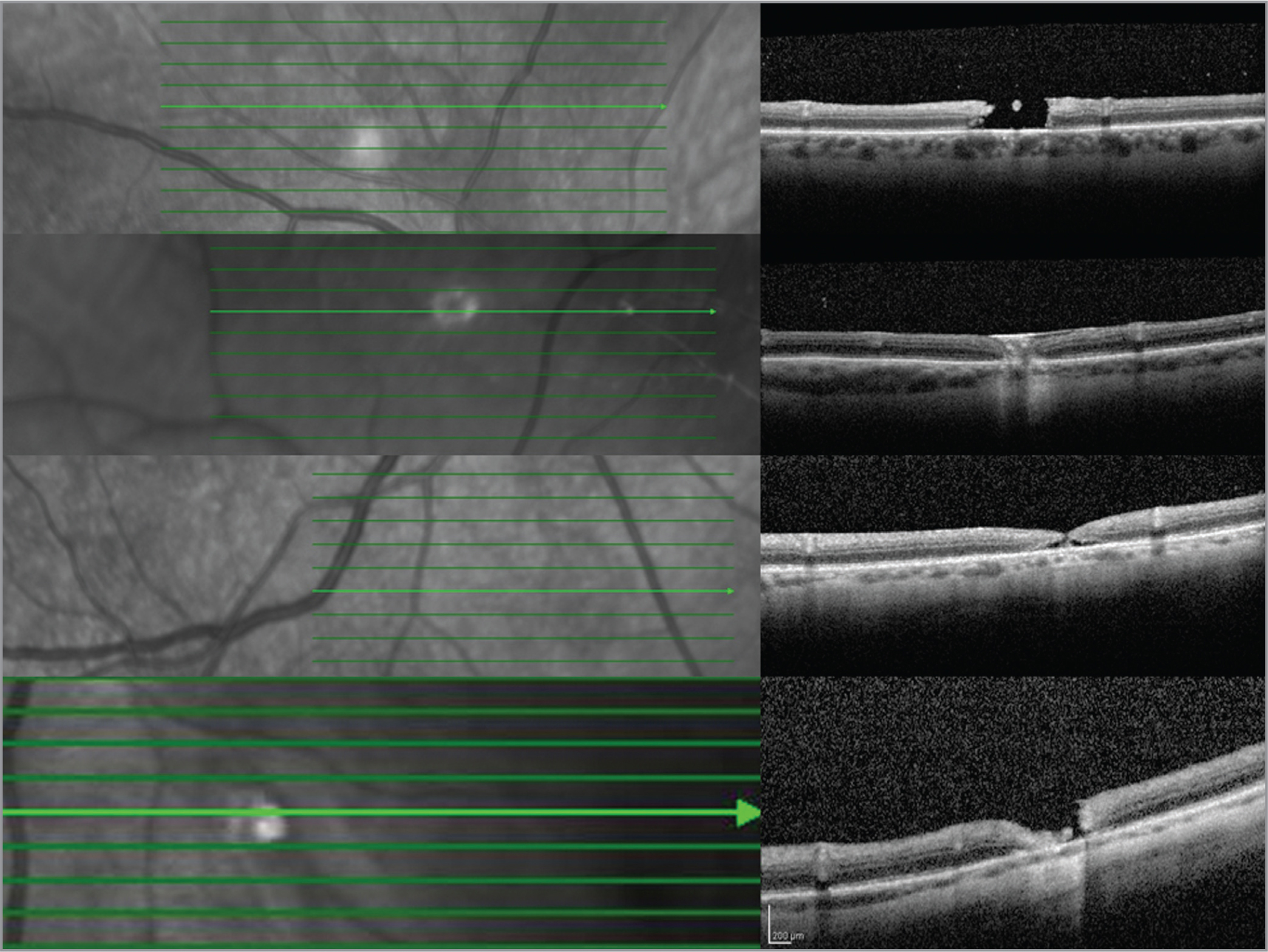 Optical coherence tomography image of non-lasered retinotomies.