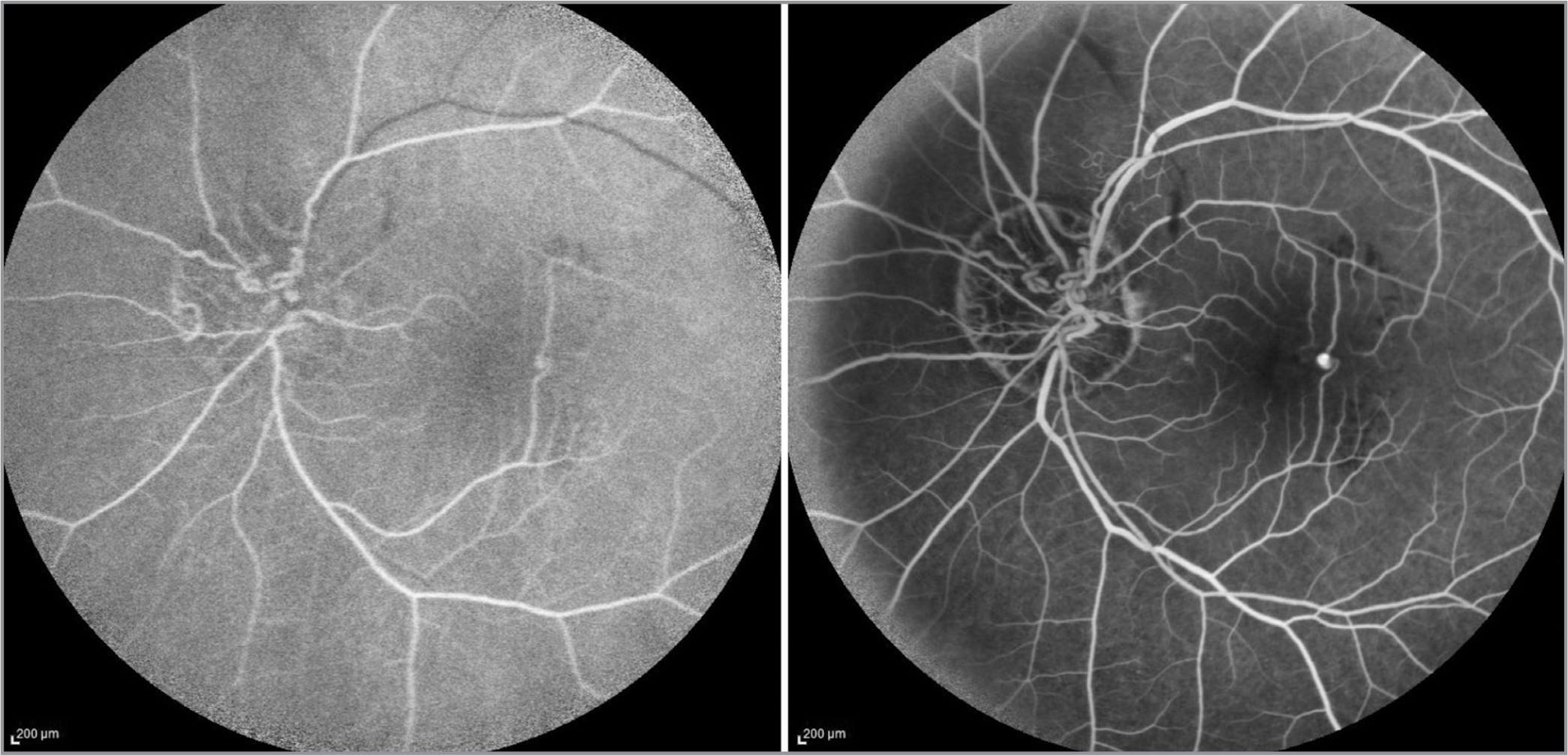 (Left) Early frames of fluorescein angiography showing filling of the perifoveal exudative vascular anomalous complex (PEVAC)-like lesion in early arteriovenous phase. Superotemporal vein filling slowly due to a possible venous obstruction due to arterial loops. (Right) A well-defined hyperfluorescent structure corresponding to PEVAC-like ectasia.