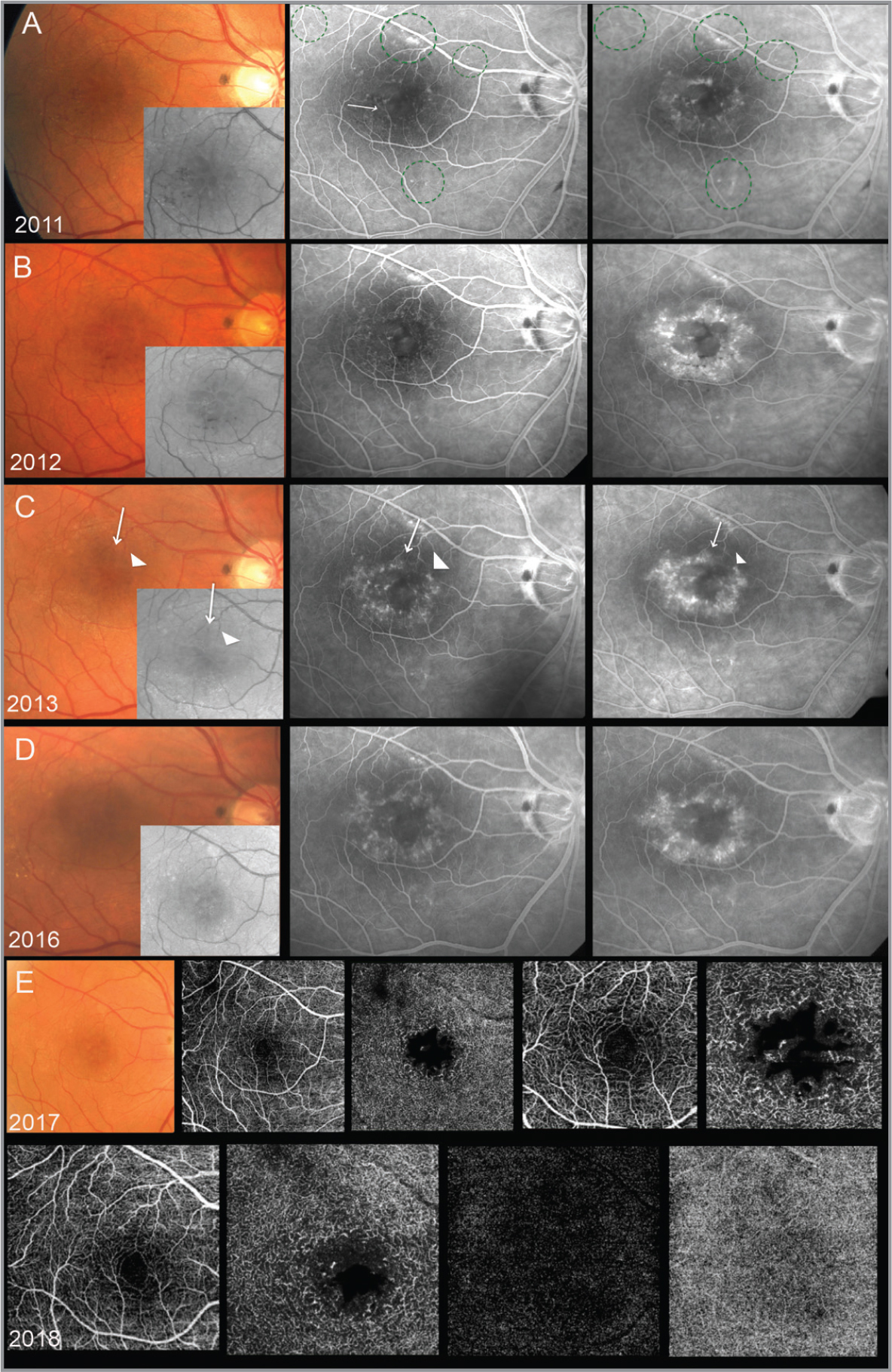 Fundus imaging follow-up of the right eye. (A) Color fundus and red-free photographs, early phase and late-phase fluorescein angiography (FA) of the right eye at first evaluation (July 2011). Color fundus photograph shows macular telangiectasia with small preretinal hemorrhages, macular cysts, and crystalline deposits. These findings are better detected on red-free imaging (small box). Early phase FA reveals ectatic capillaries at the posterior pole not only at the perifovea (green circles) and one blunted slightly dilated venule (arrow). Late-phase FA shows leakage from ectatic capillaries. (B) Color fundus and red-free photographs, early-phase and late-phase FA (November 2012). Color fundus photograph and red-free images show a reduction of the ectatic capillaries and the preretinal hemorrhages. (C) Color fundus and red-free photographs, early phase and late-phase FA (August 2013). The telangiectasia is almost imperceptible at the color fundus and red-free imaging although it is well seen at the early and late FA stages. Ectatic capillary (arrowhead). Pre-retinal dot hemorrhage (arrow). (D) Color fundus and red-free photographs, early phase and late-phase FA. In this figure at the color fundus and red-free imaging, telangiectasia and hemorrhages are not detectable (October 2016). (E) Color fundus photograph, optical coherence tomography angiography (OCTA) of superficial and deep vascular network. On the left, the first two images show 6 × 6 OCTA scans; the other two images show 3 × 3 OCTA scans (May 2017). OCTA revealed saccular capillary telangiectasia and loss of parafoveal vascular density. In particular, it is possible to see the dilated vessels in the deep retinal capillary plexus that are the most pronounced in the region temporal to the fovea. (F) OCTA of superficial and deep vascular network, outer retinal segments, and choriocapillaris (January 2018). Images show 4.5 × 4.5 OCTA scans. Outer retinal segments and choriocapillaris do not show flow signal.