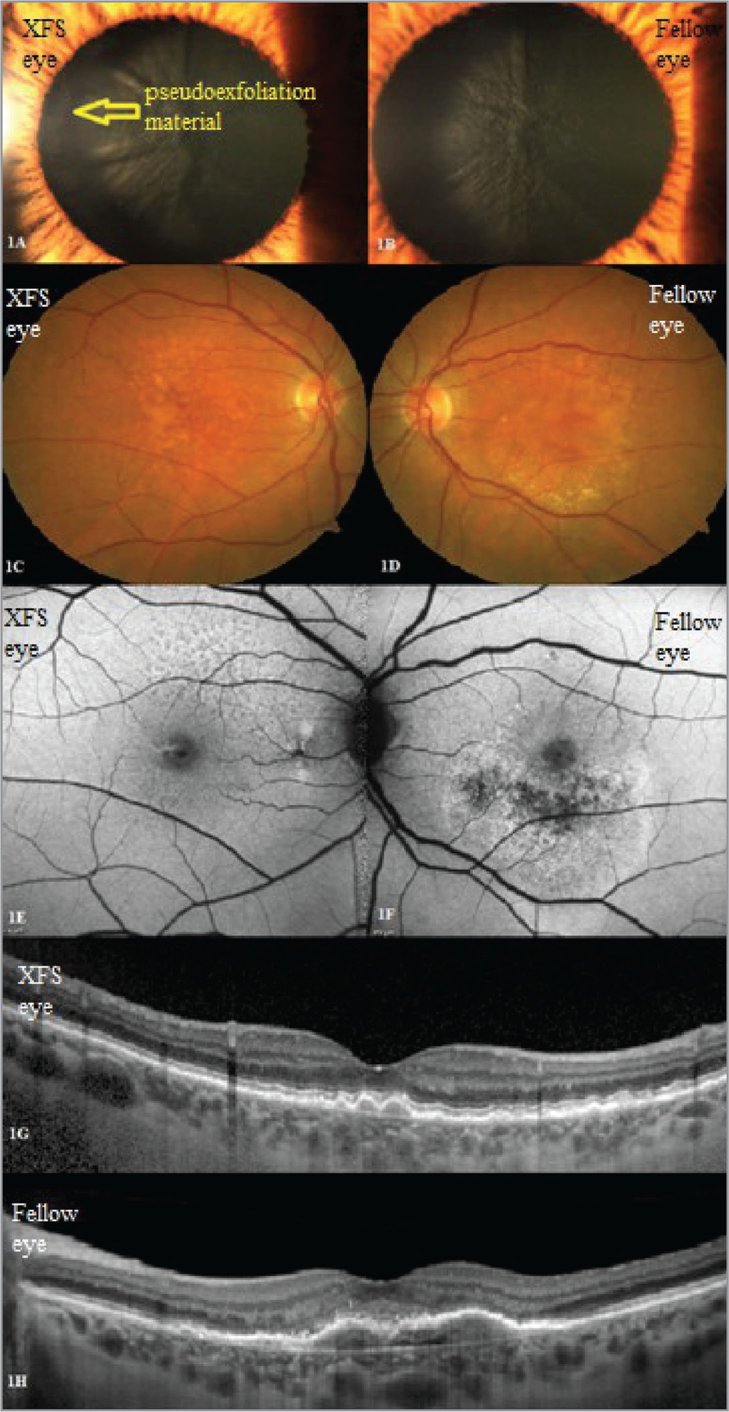 Representative images including the anterior segment, color fundus, fundus autofluorescence, and optical coherence tomography of a patient with clinically unilateral pseudoexfoliation syndrome (XFS) and bilateral age-related macular degeneration (AMD). (A, C, E, and G) (Right eye): Eye with clinically unilateral XFS (arrow) and intermediate AMD. (B, D, F, and H) (Left eye): Non-XFS fellow eye with wet AMD.