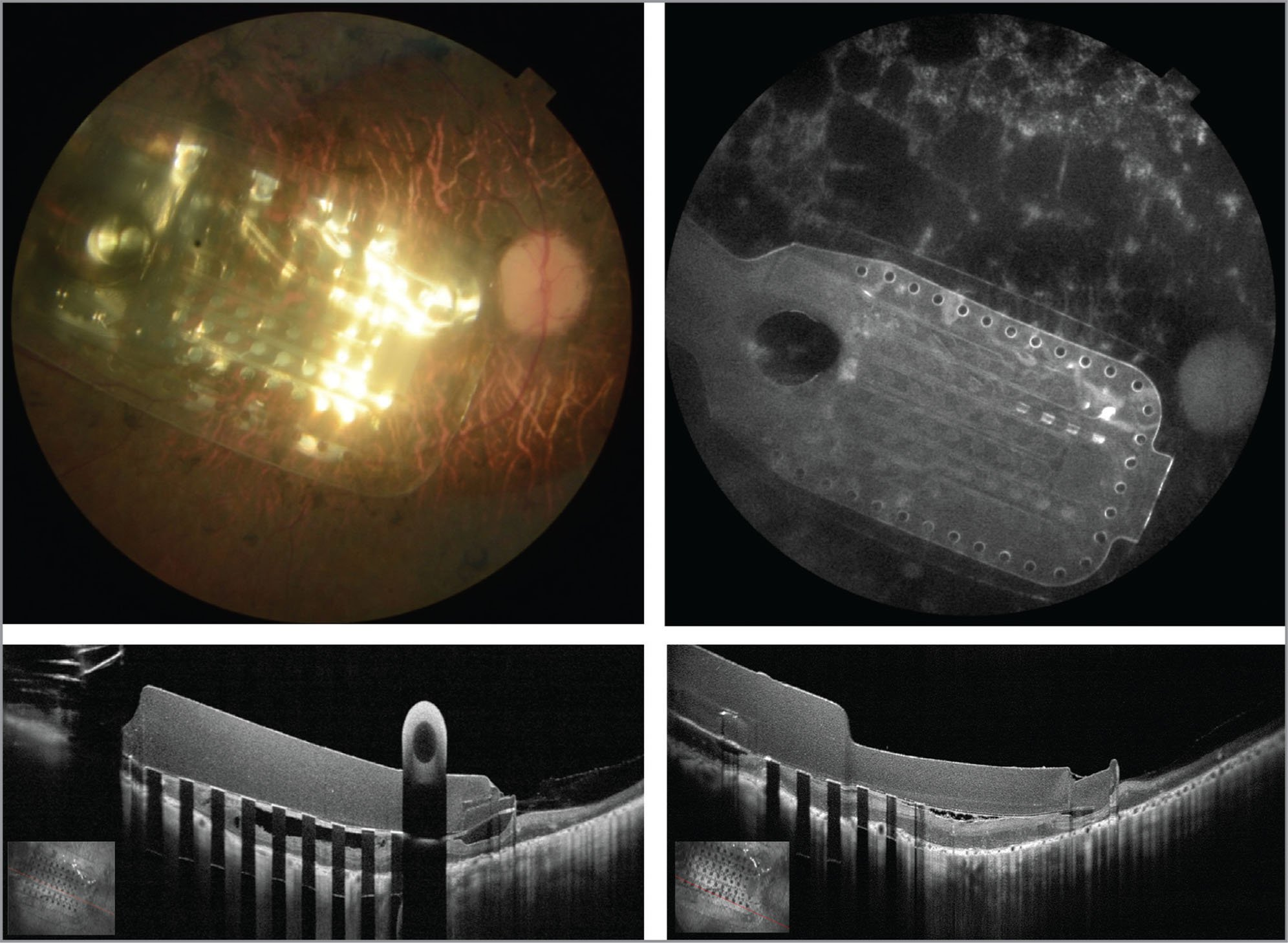 Color fundus photography, fundus autofluorescence, and enhanced high-definition 12.00 mm scan length optical coherence tomography (OCT) images of the electrode array-implanted eye 1 year after the surgery using OCT angiography.
