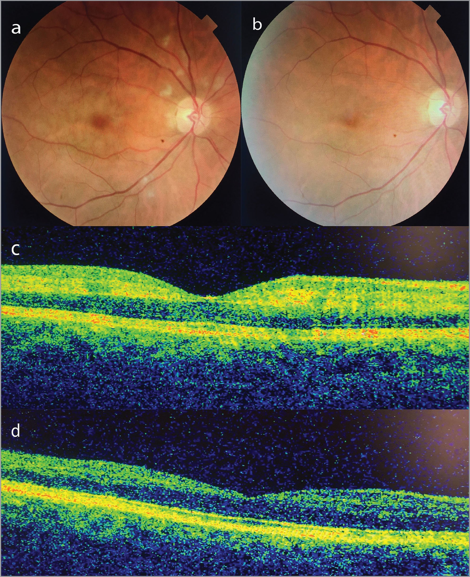 Fundus photograph of the right eye of 63-year-old male patient (Case 2) with Purtscher-like retinopathy at presentation shows scattered cotton-wool spots and parafoveal mild, whitish-appearing retina (a). Spectral-domain optical coherence tomography (SD-OCT) scan demonstrates increased reflectivity in the inner plexiform, inner nuclear, outer plexiform, and outer nuclear layers in the parafoveal retina (c). Fundus examination was unremarkable (b), and SD-OCT macular scan shows controlled retinal atrophy at 12 months (d).