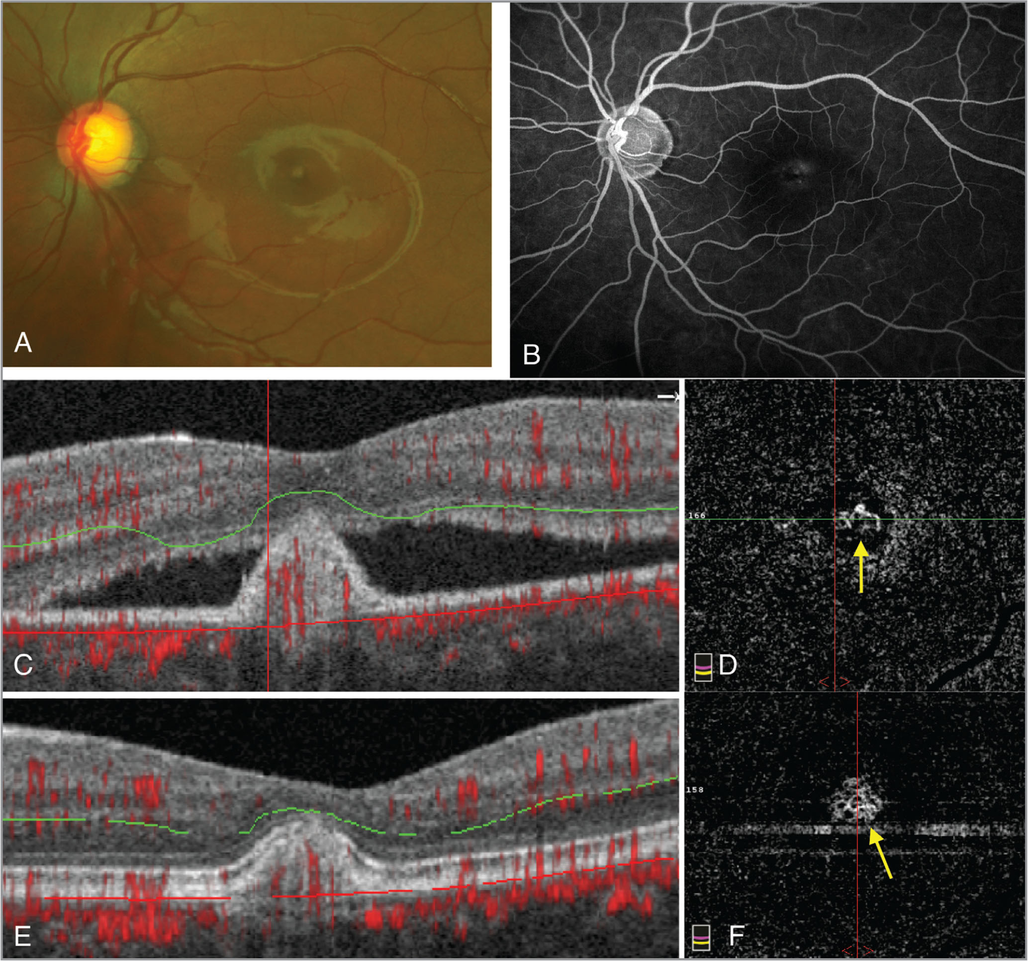(A) Fundus photo of the left eye showing a retinal pigment epithelium detachment (RPED) and subretinal fluid. (B) Late-frame fluorescein angiography image of the left eye shows blockage from the RPED along with subtle hyperfluorescence. (C) An optical coherence tomography (OCT) B-scan with outer retina segmentation and OCT angiography (OCTA) decorrelation signal overlay show subretinal fluid with a RPED that has increased flow signal indicative of choroidal neovascularization (CNV). (D) Corresponding en face OCTA of the outer retina shows a definite CNV membrane (arrow). (E) Follow-up OCT B-scan of the outer retina with resolution of subretinal fluid, and corresponding en face OCTA showing persistence of the CNV membrane (F, arrow).