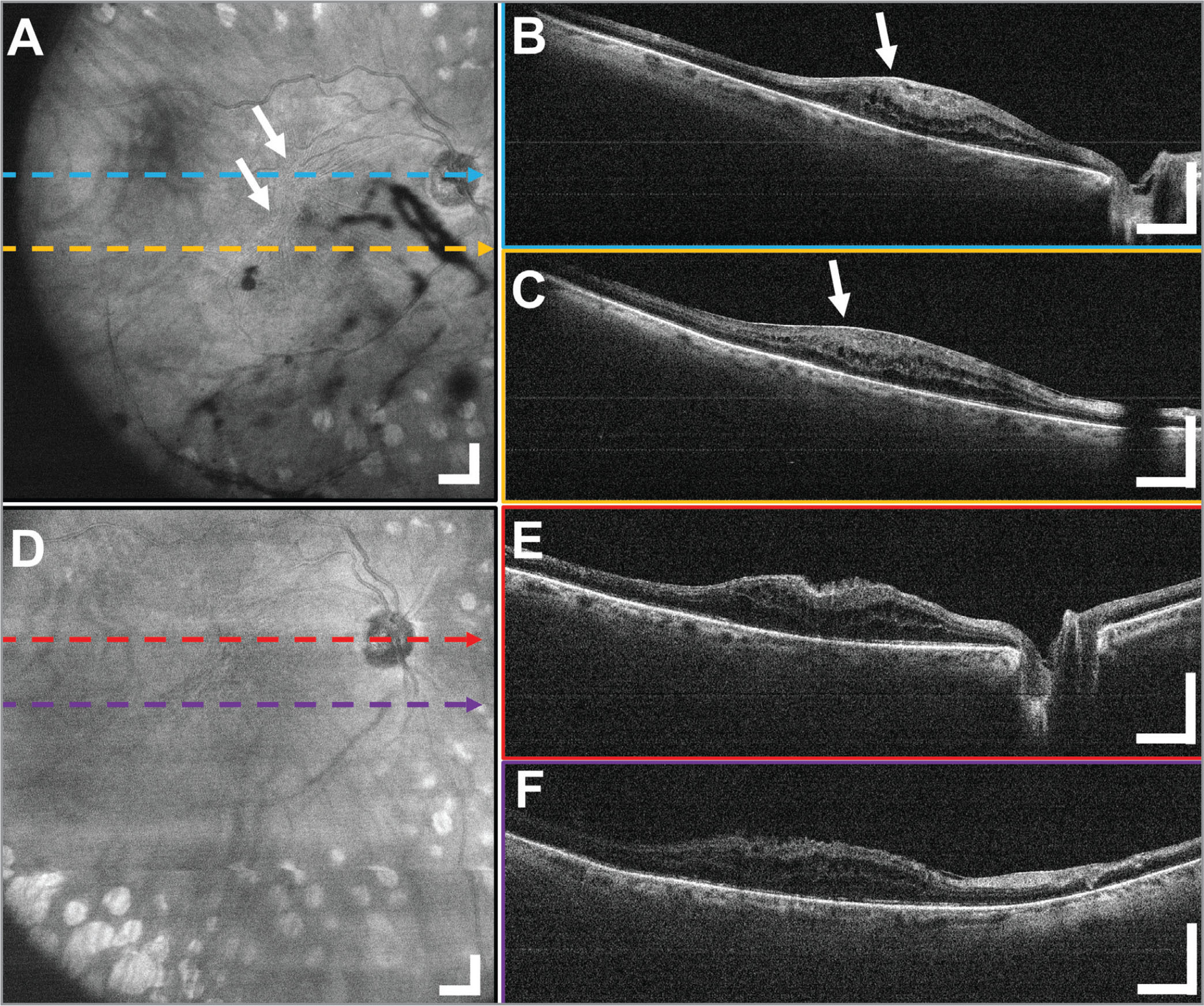 A 12 × 12 mm2 widefield imaging in the right eye of a 69-year-old female subject before and after epiretinal membrane (ERM) peel through the standard 80 diopter non-contact fundus lens. The pathological region of macular pucker can be seen in the (A) en face projection as wrinkling of the retinal surface shown with arrows and (B, C) B-scans as a bright band between the retina and vitreous interface indicated with the arrow. (D–F) The postoperative widefield images of the same patient show the extent of the removal of the ERM and the feathery appearance of the interface between the retina and vitreous. Displayed B-scans are averages of five adjacent B-scans. Scale bars are 1 mm.