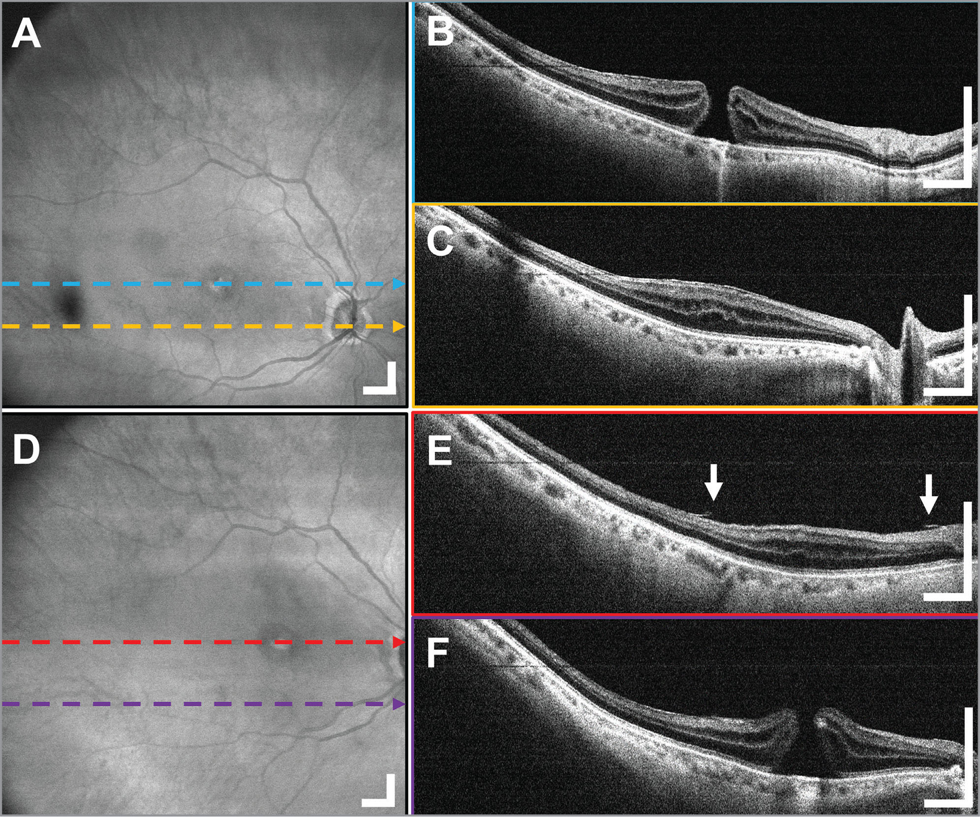 A 12 × 12 mm2 widefield optical coherence tomography (OCT) in a 77-year-old female subject undergoing vitrectomy and internal limiting membrane (ILM) peeling for a macular hole (MH) imaged through the anti-reflection-coated 80 diopter non-contact fundus lens. (A) Widefield en face OCT projection, demonstrating that the MH and surrounding retina can be visualized in a single OCT acquisition. (B, C) The increased retinal thickness and MH can be observed in the B-scans. (D) Widefield en face OCT projection with (E, F) the B-scans from the postoperative widefield OCT data show the full extent of the ILM membrane peel around the MH. The decreased tangential traction on the edges of the hole can also be appreciated. Arrows indicate the edges of peeled ILM. Displayed B-scans are averages of five adjacent B-scans. Scale bars are 1 mm.