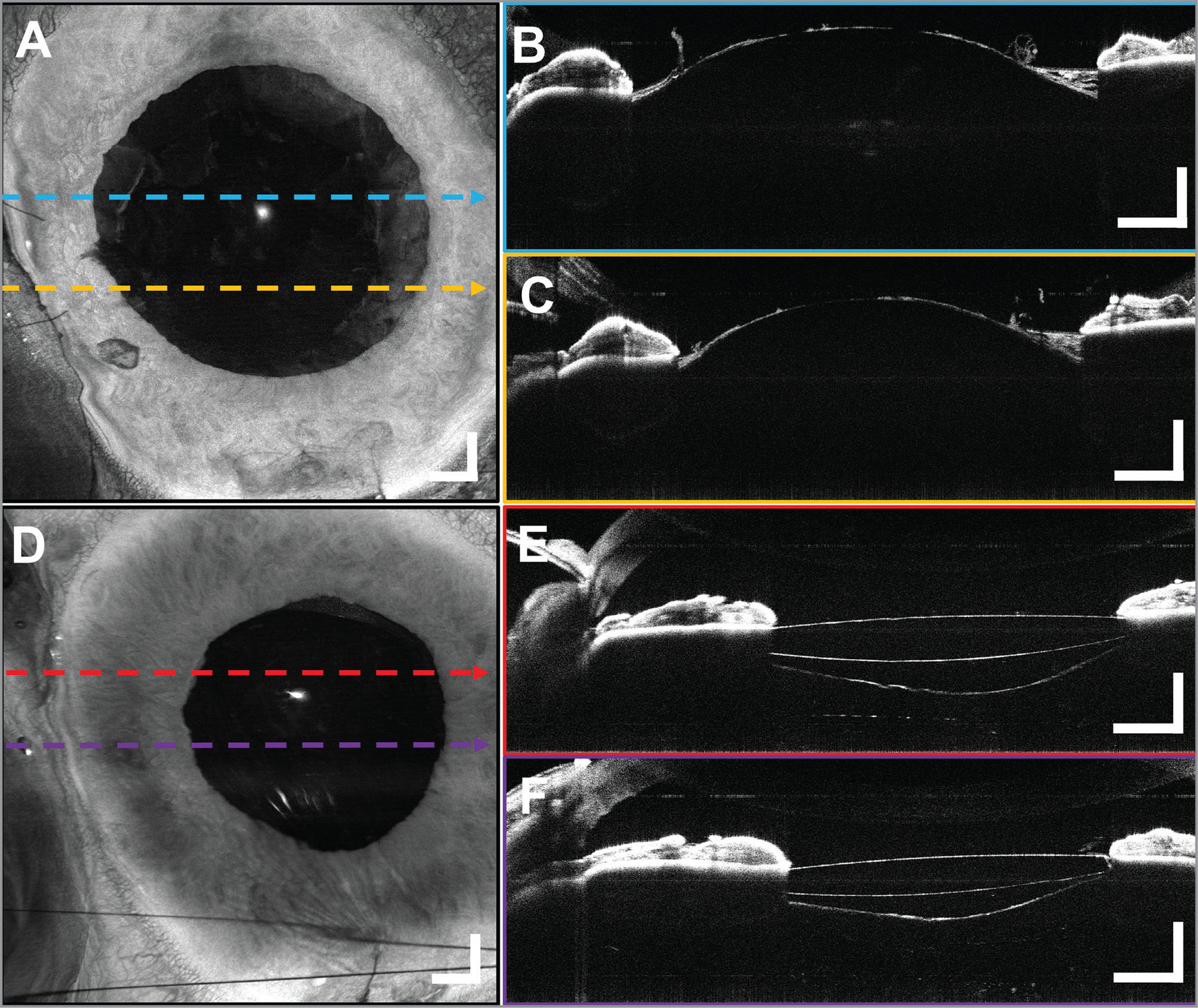 A 10 × 10 mm2 widefield optical coherence tomography (OCT) volumetric images from a 70-year-old male subject undergoing cataract removal. Post-phacoemulsification (A) en face projection with (B, C) representative B-scans. Edges of the anterior capsule are noted (arrows). The remains of the peeled anterior lens capsule and the intact posterior surface of the lens can be seen bulging forward because of the positive vitreous pressure. The OCT confirms the absence of a posterior capsular rent. Postoperative (D) widefield en face projection of the implanted intraocular lens (IOL) with (E, F) representative B-scans confirming the placement of the IOL in the posterior capsule with the ends of the optics behind the iris. The edges of the capsulorrhexis are visible anterior to the IOL (arrows), and the intact posterior capsular bag is filled with viscoelastic posterior to the IOL. Displayed B-scans are averages of five adjacent B-scans. Scale bars are 1 mm.