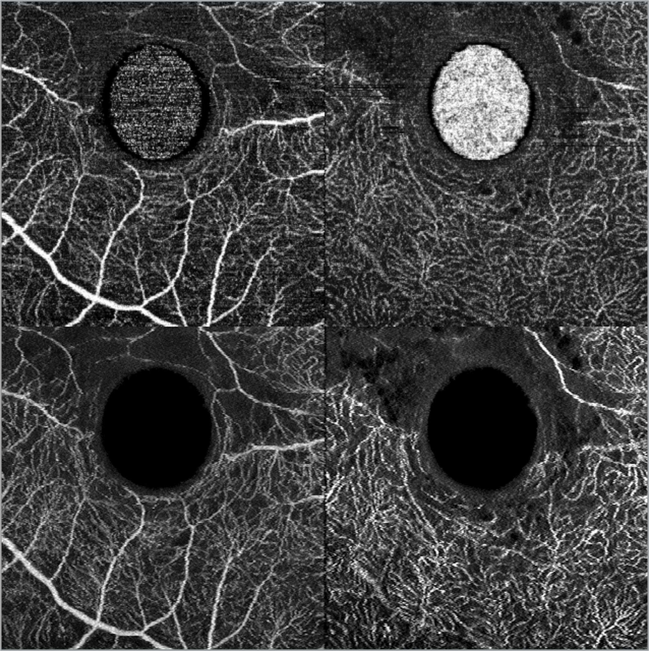 Swept-source optical coherence tomography angiography of full-thickness macular hole. Manual artifact removal. The upper images present a macular hole in superficial (left) and deep (right) retinal vessels. The oval hyperreflective shape in the middle is an artifact. The lower pictures were transformed with temporal and de-flickering noise reduction algorithms and plugins in Adobe After Effects in order to remove the central artifact. We noted areas of decreased perfusion on the upper margin of the macular hole. These probably correspond to retinal edema around the macular hole.