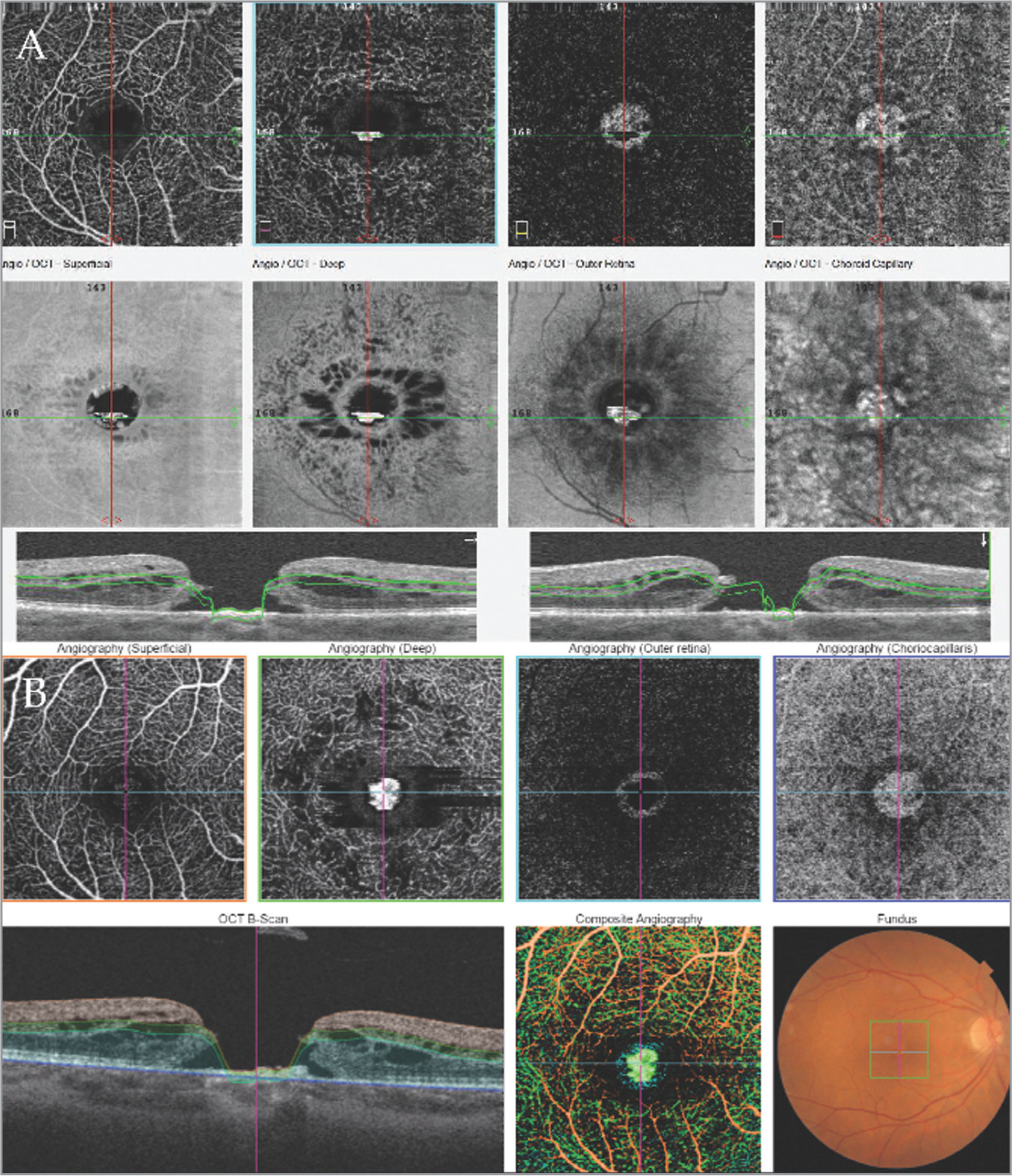 Comparison of two different optical coherence tomography (OCT) techniques of the same eye on the same day. (A) Spectral-domain OCT angiography (OCTA) (RTVue). (B) Swept-source OCTA (Triton).
